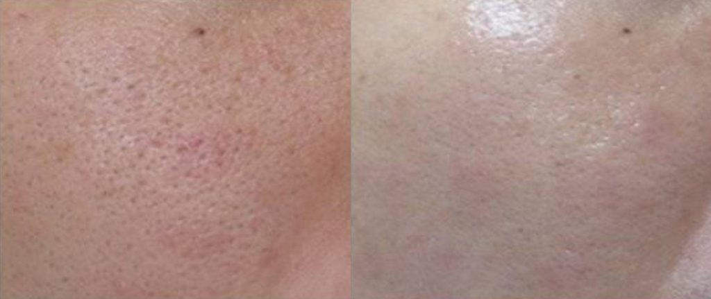 Before and after Vivace pores