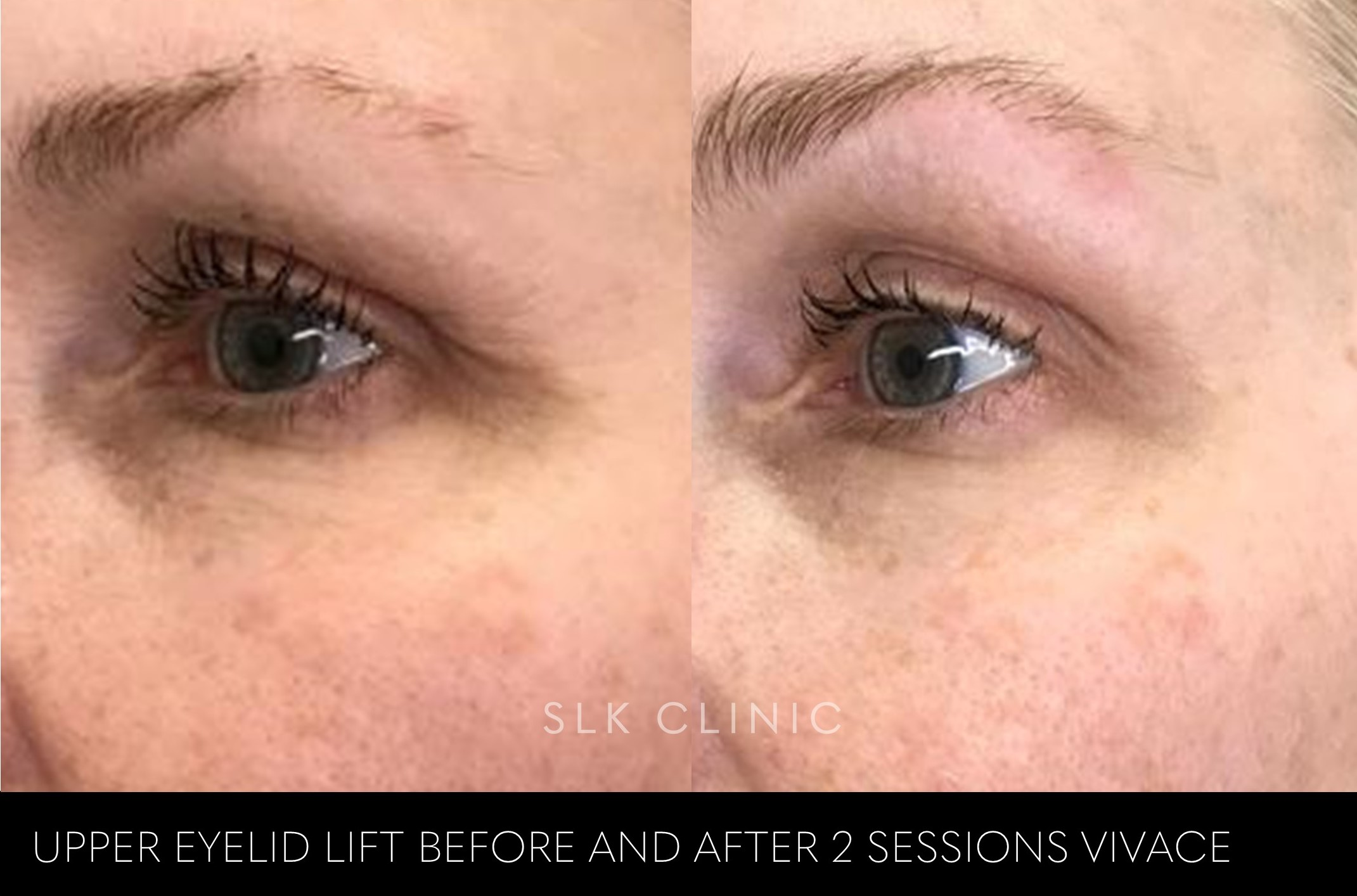 Eyelid lift after 2 sessions of Vivace skin tightening and botox eyebrow lift nashville tennessee