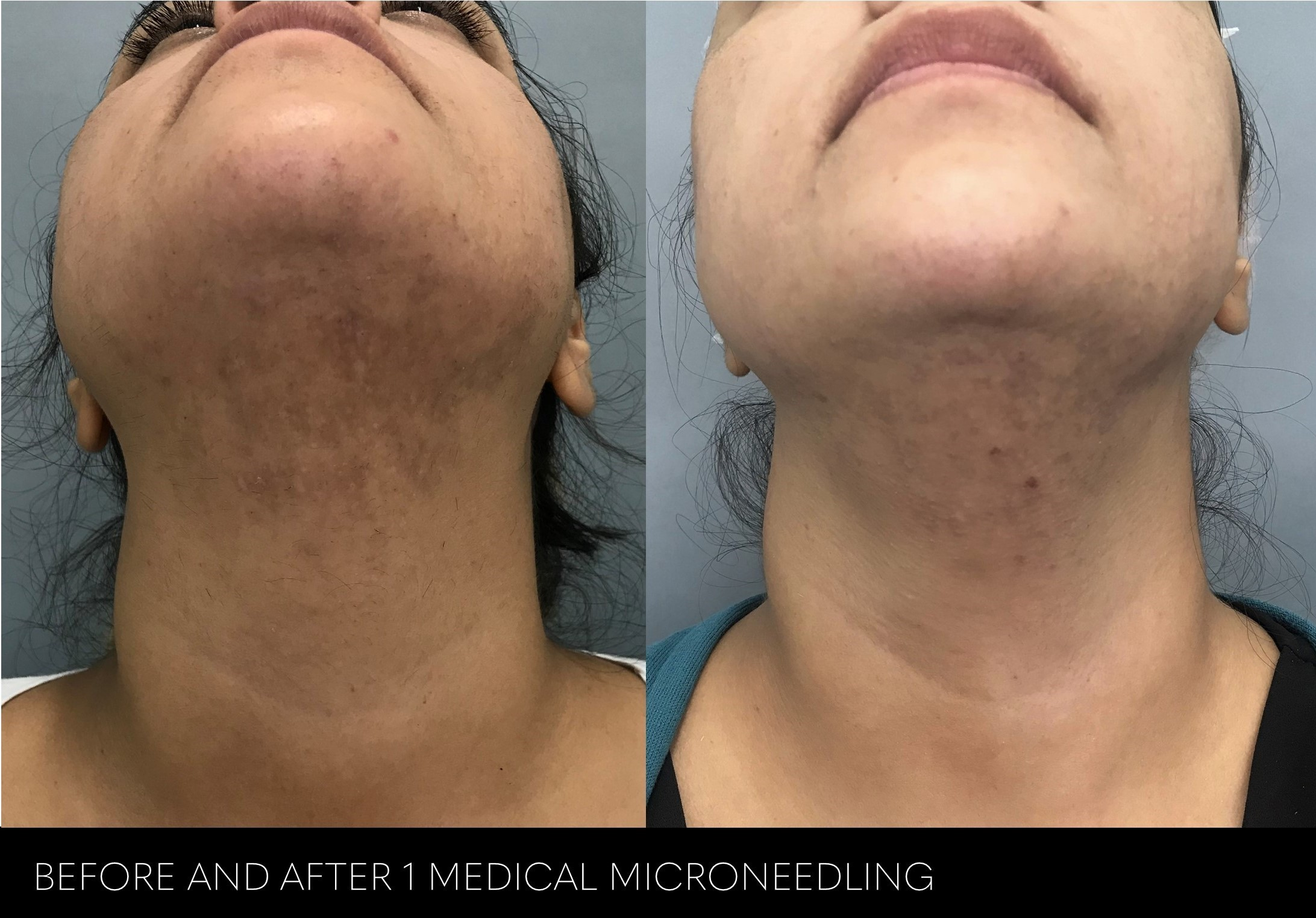 before and after 1 session for hyperpigmentation to neck - microneedling nashville