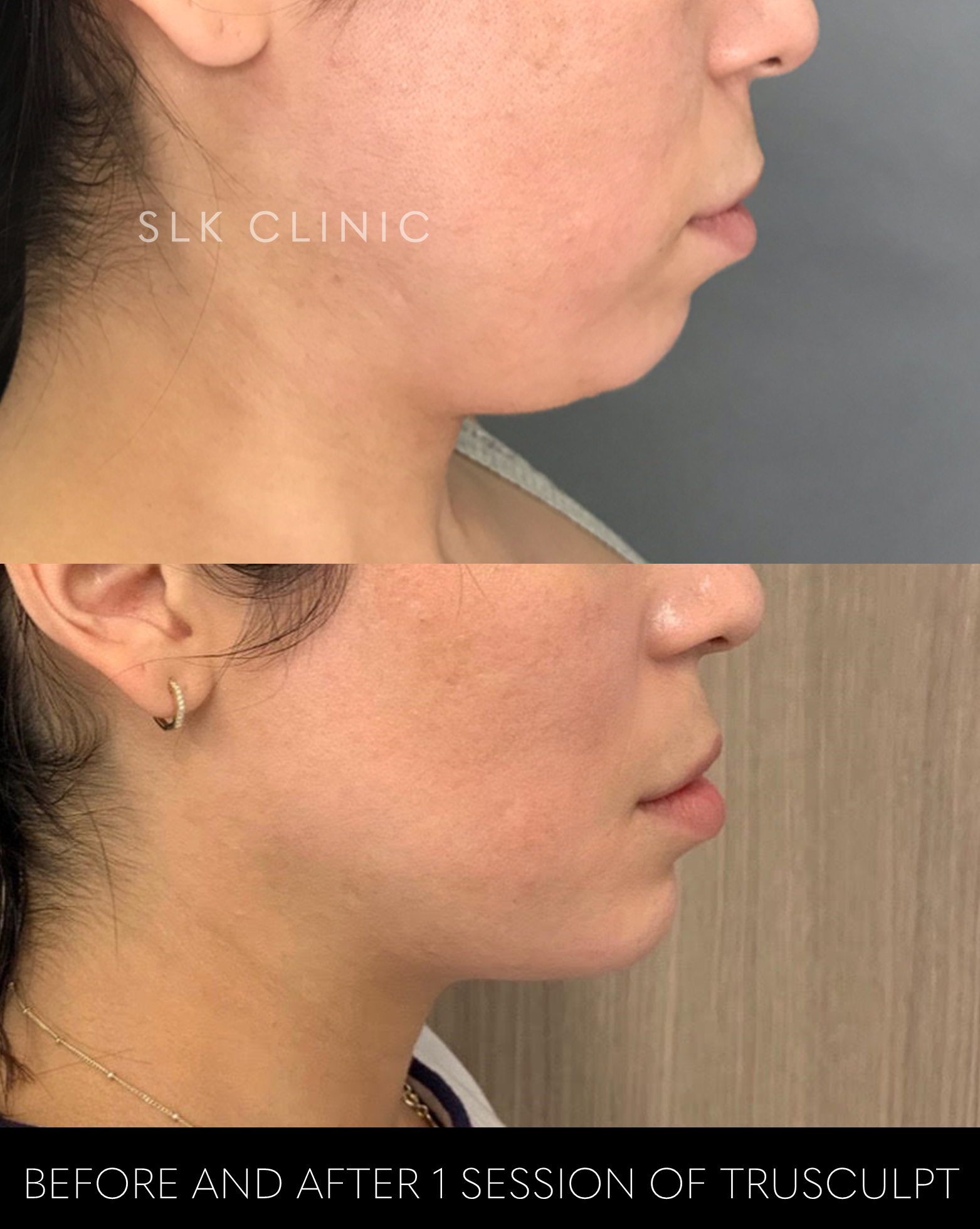 before and after 1 session of trusculpt chin and 1 syringe chin filler