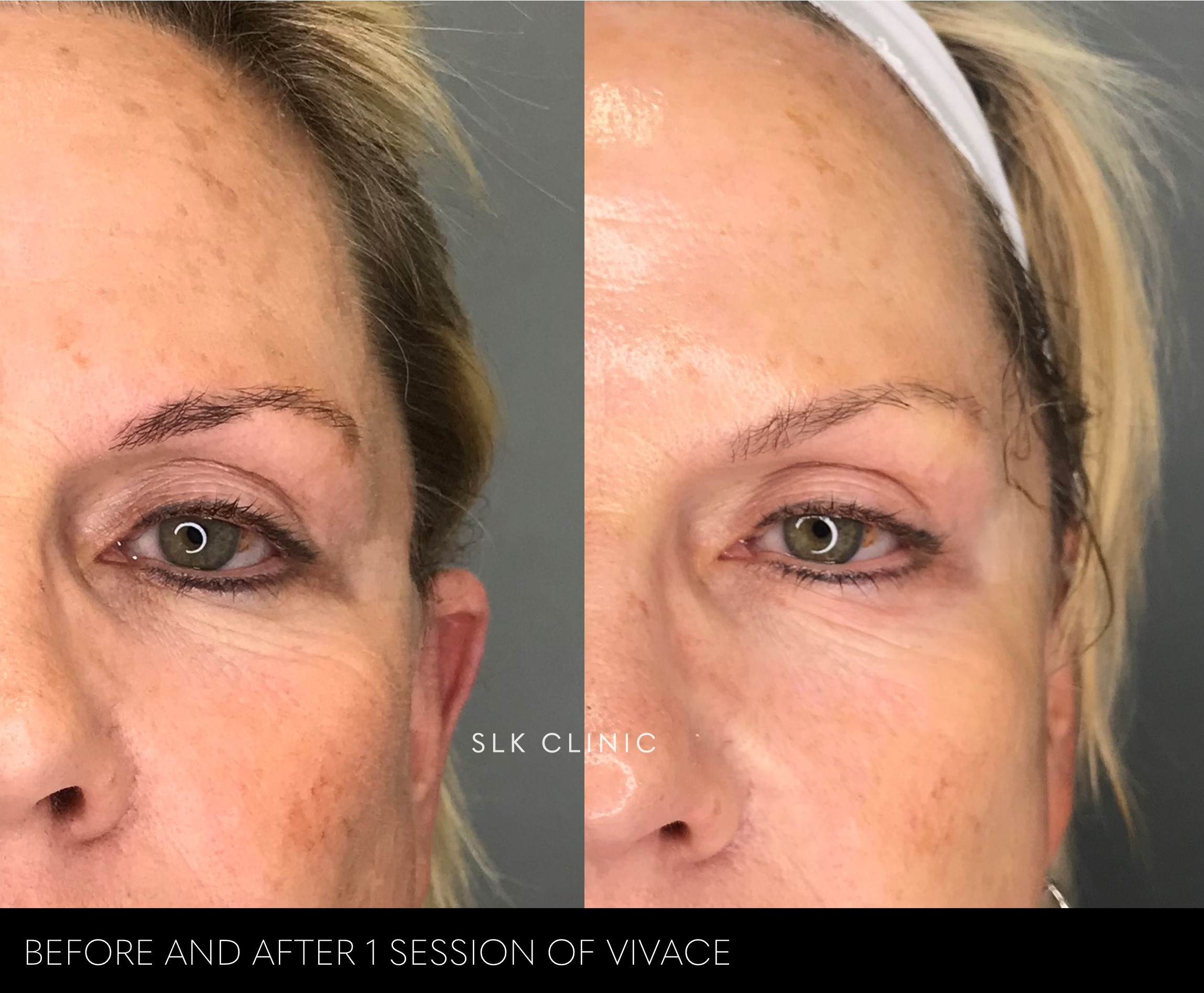 before and after 1 session of vivace for pigment, tightening, tone rejuvenation