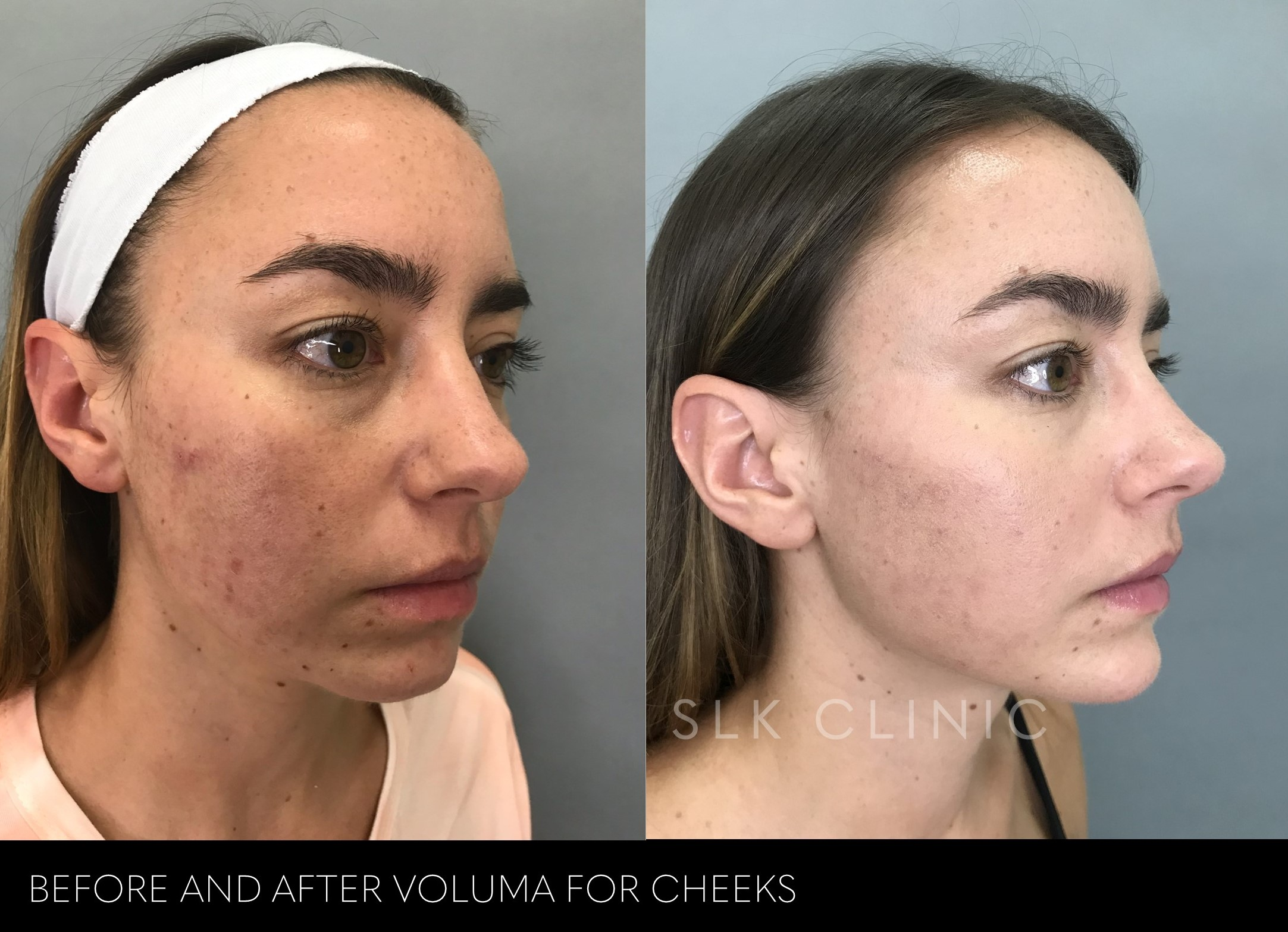before and after 1 syringe of voluma cheek filler nashville young 20s girl