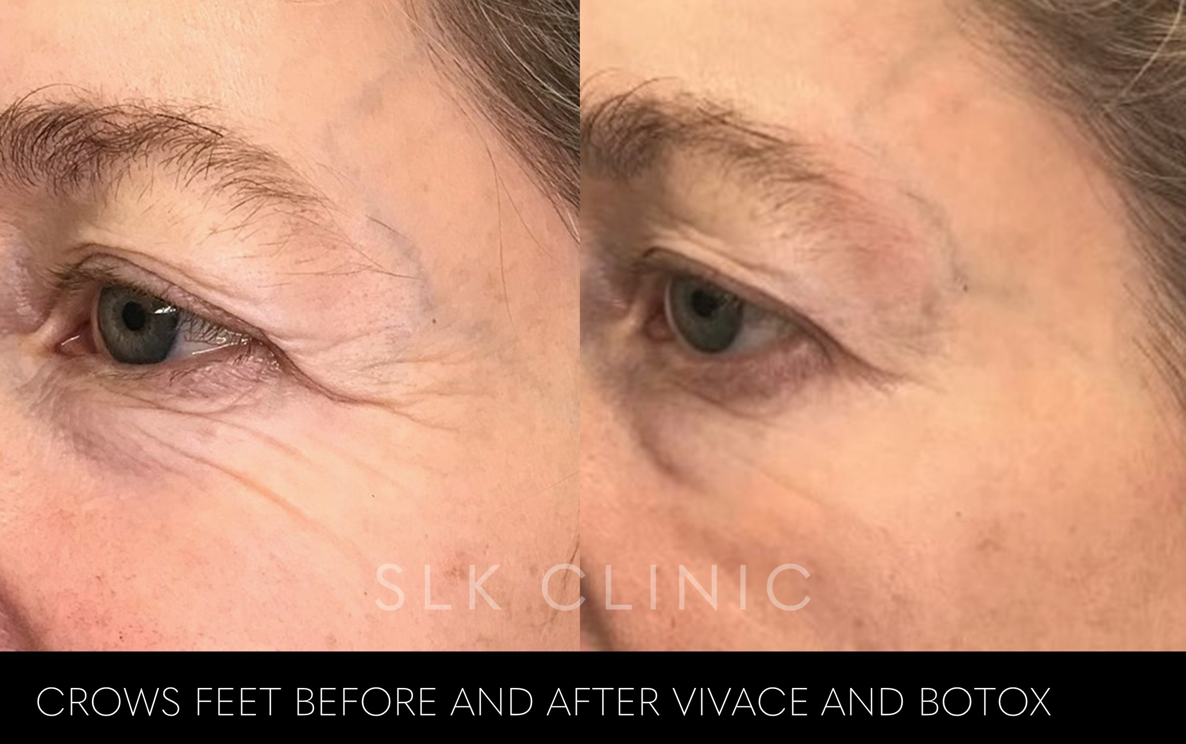 before and after 1 vivace crows feet tightening loose skin woman nashville tennessee SLK