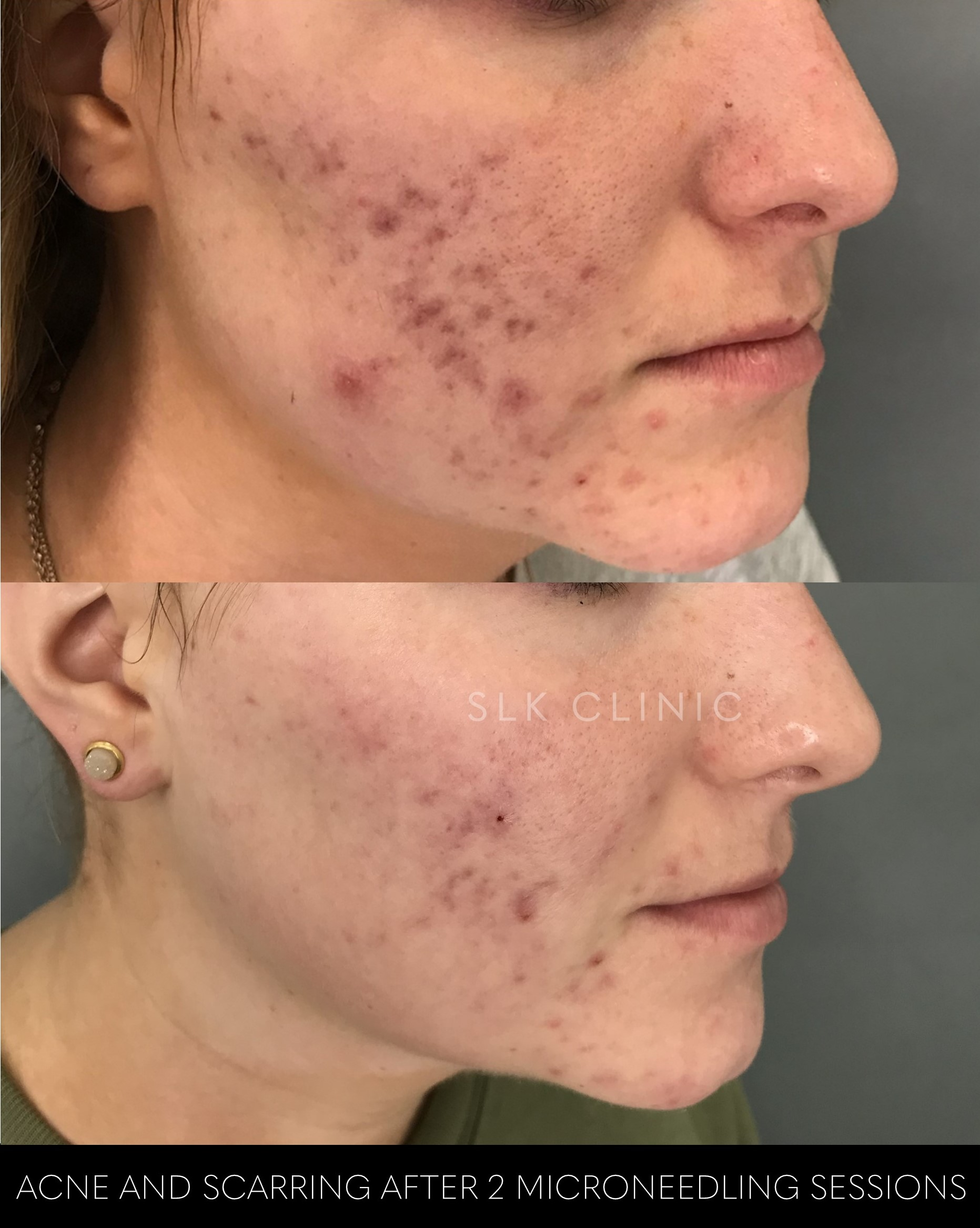 before and after 2 microneedling sessions for acne scarring; scar removal in Nashville SLK Clinic
