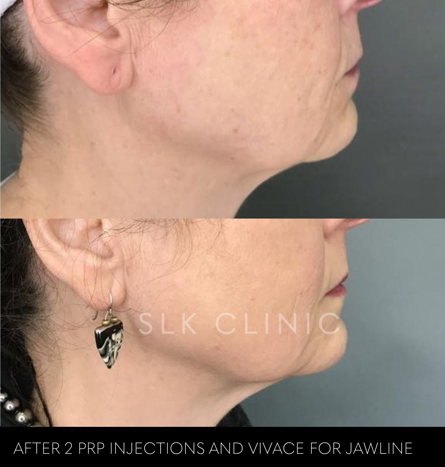 before and after 2 prp injections jawline