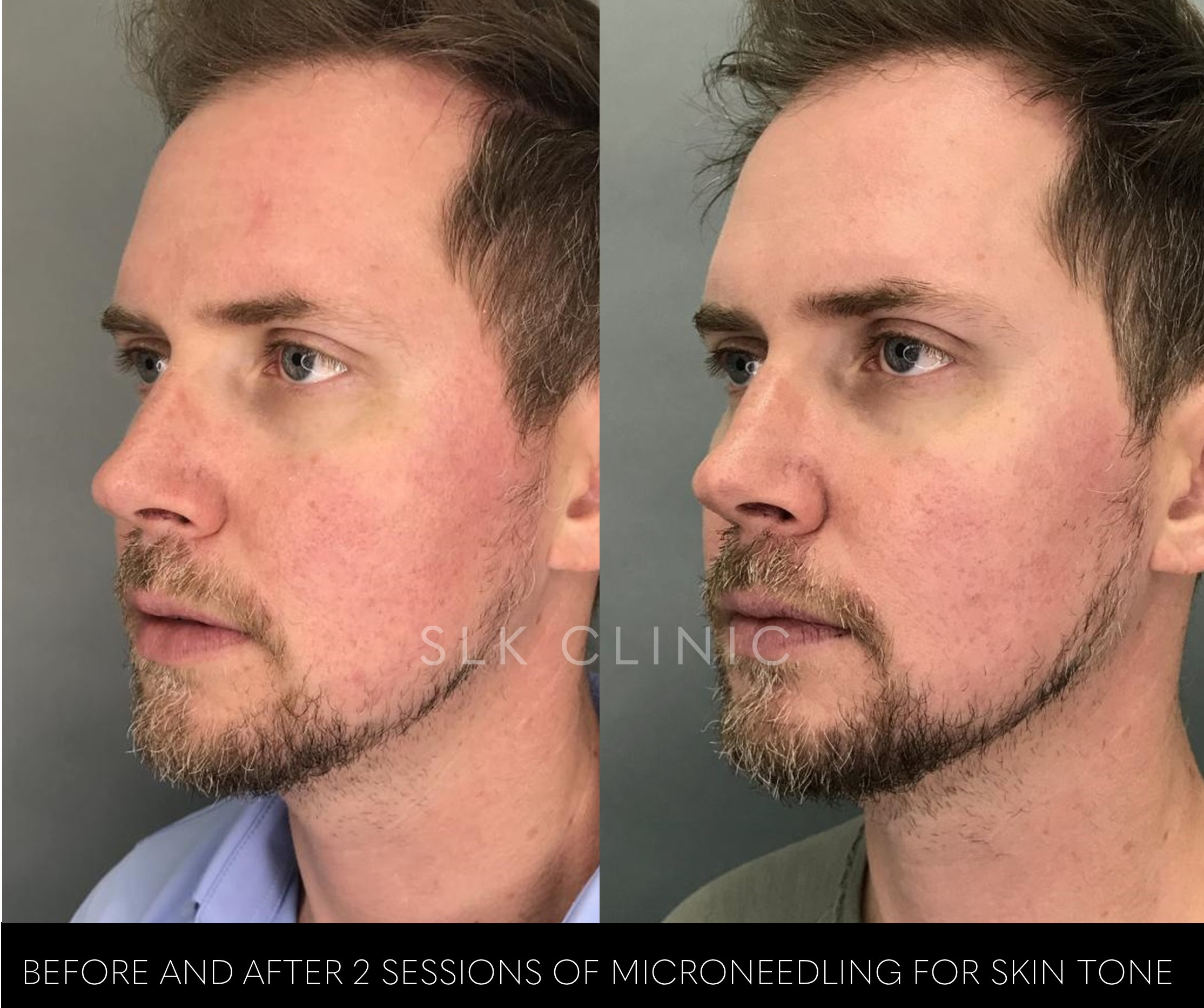 before and after 2 sessions of microneedling male man redness erythema nashville