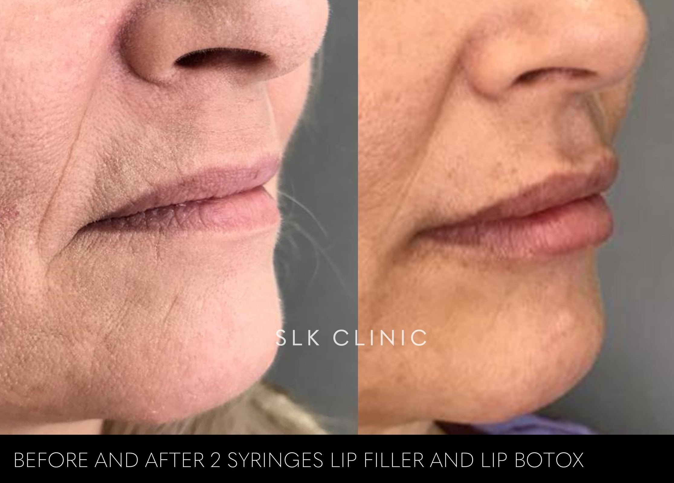 before and after 2 syringes lip filler and lip botox