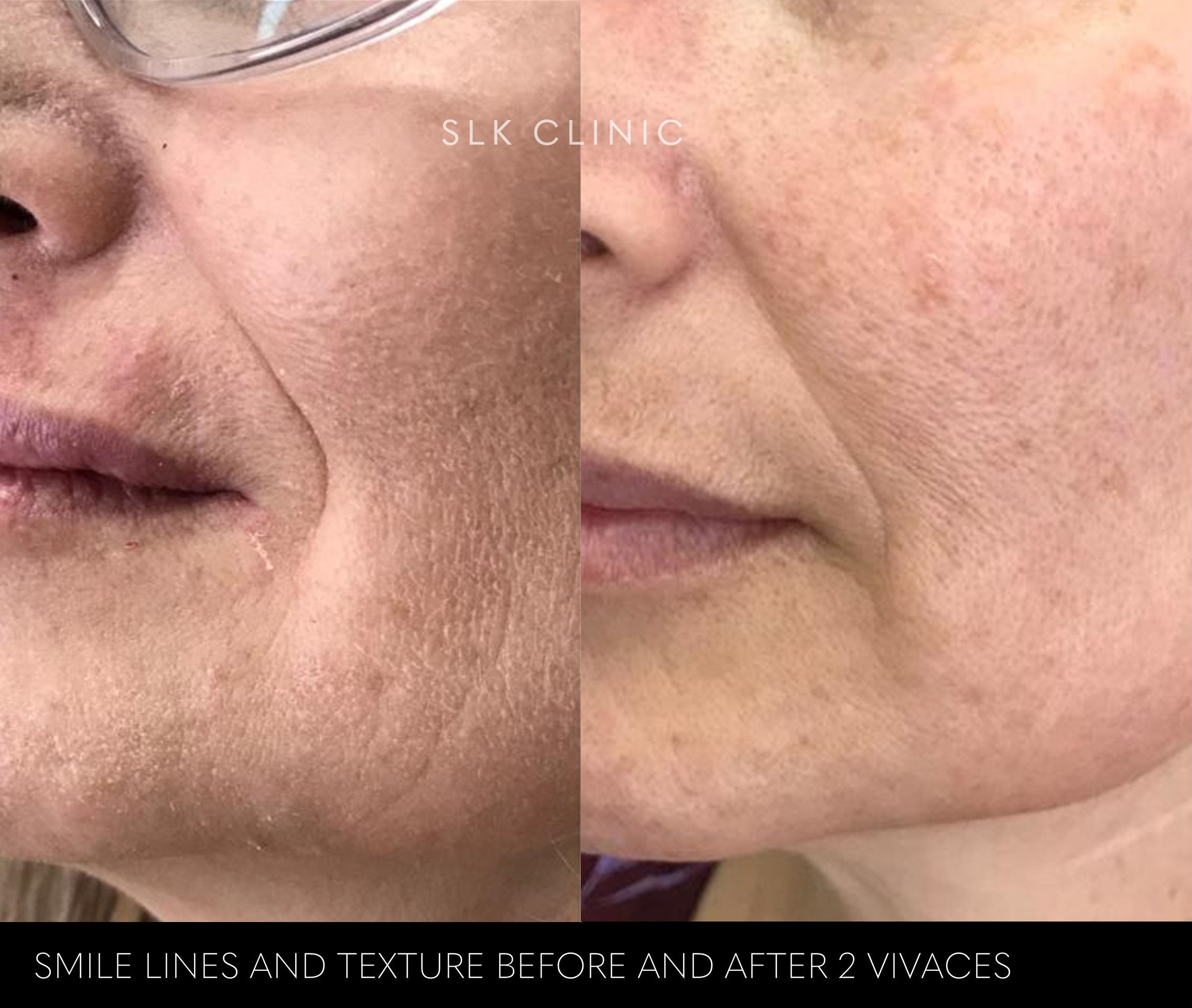 before and after 2 vivaces nasolabial fold smile lines texture