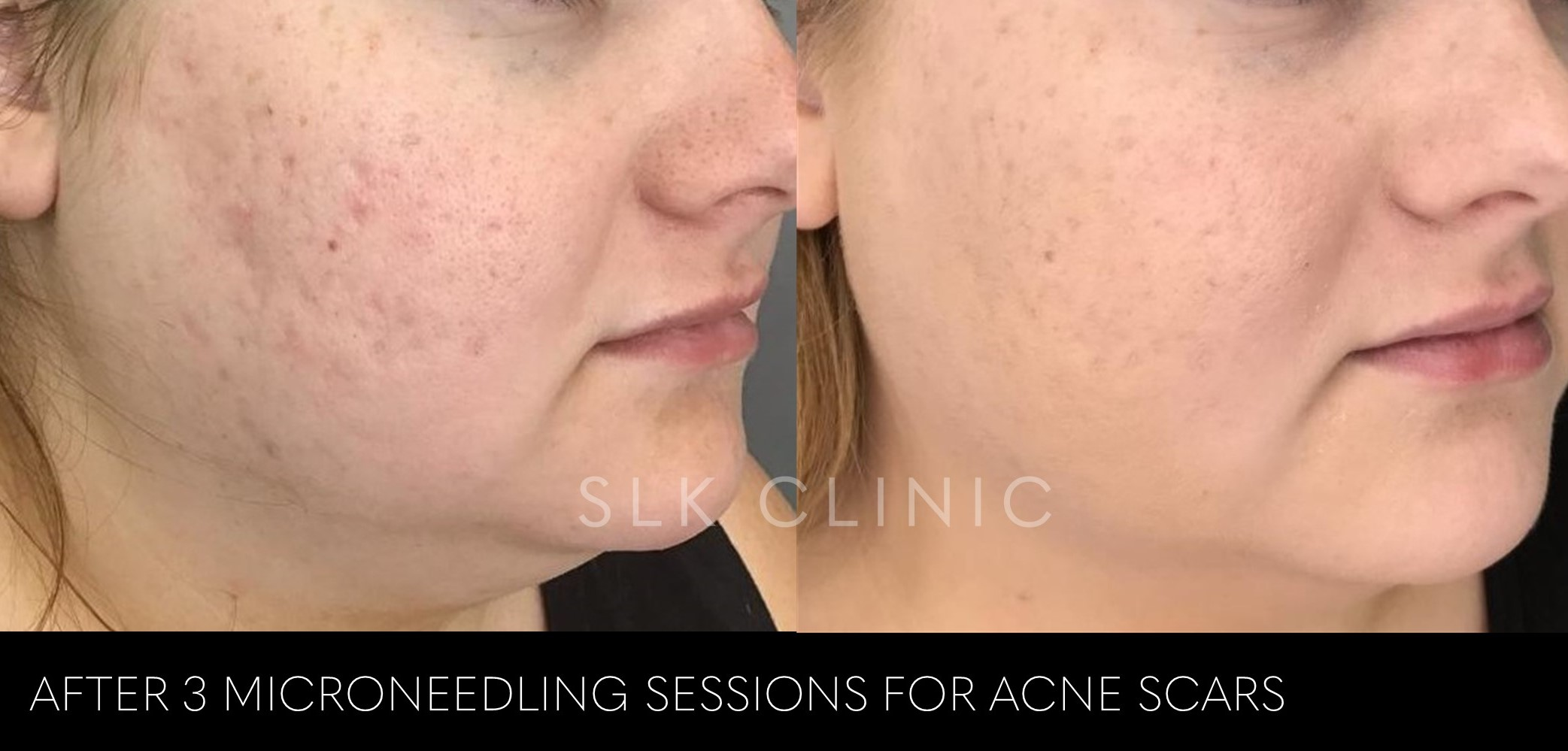 before and after 3 microneedling sessions for acne scars