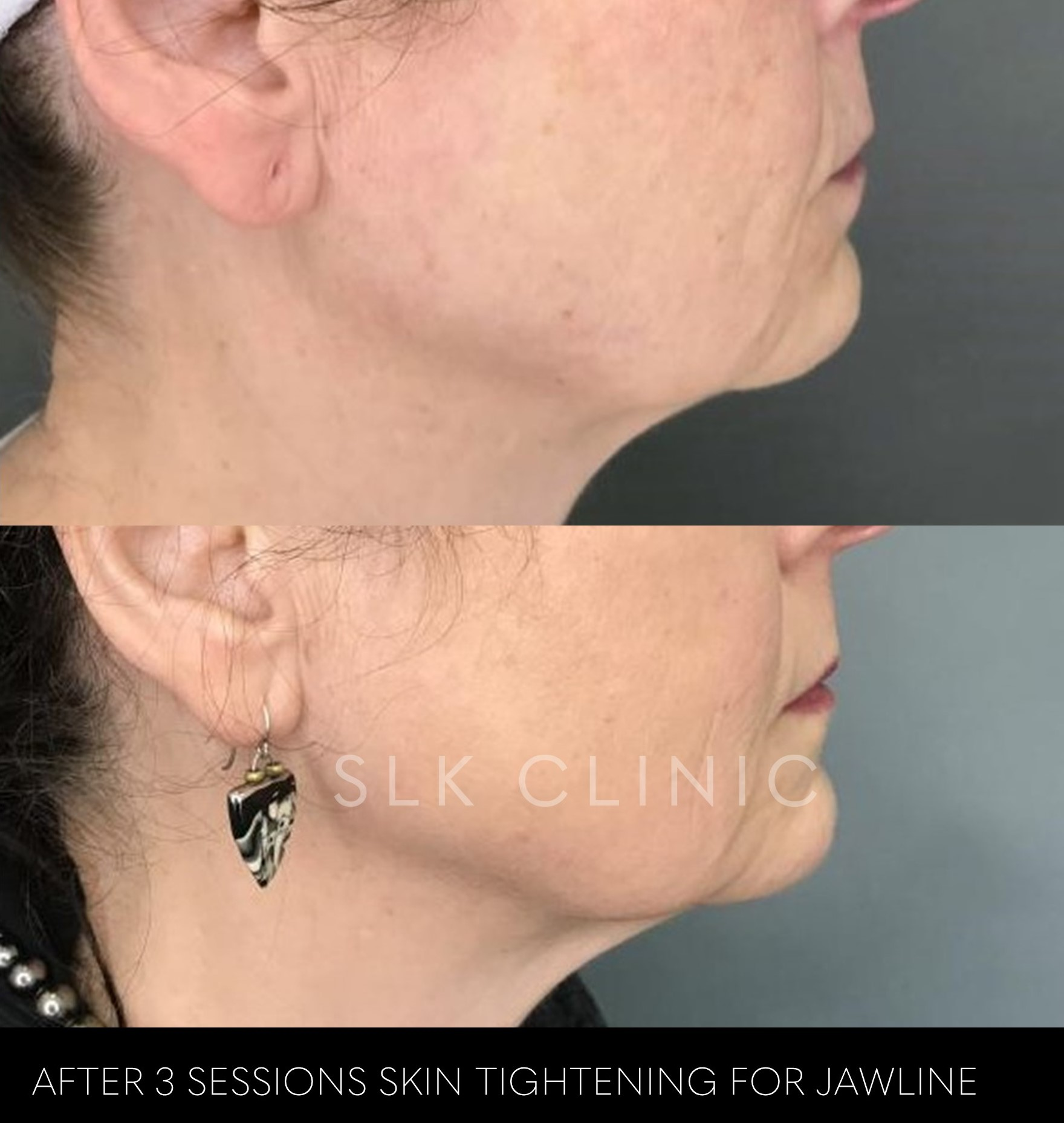 before and after 3 vivace skin tightening sessions and PRP injections for neck and jawline tightening nashville tn