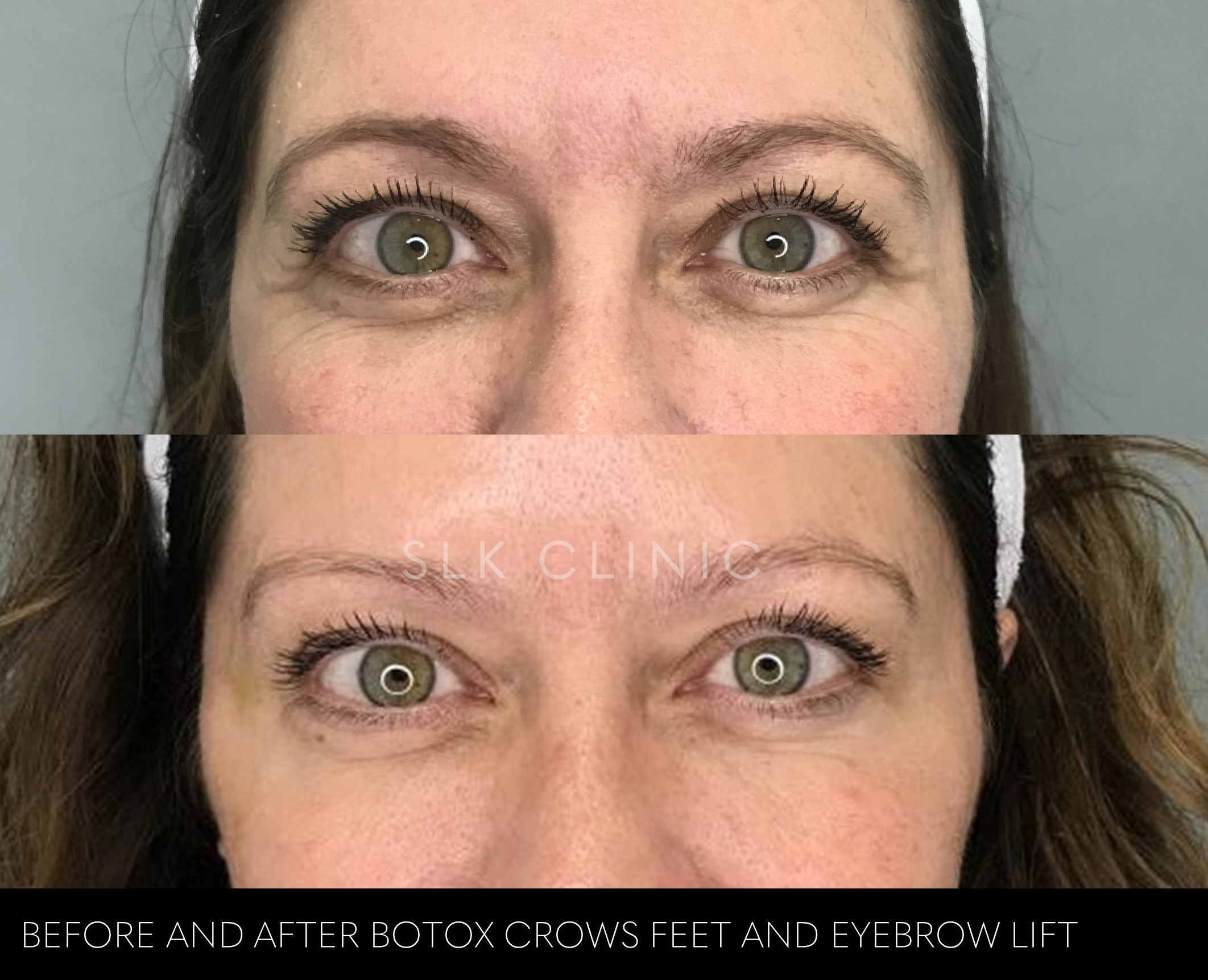 before and after photo of botox for crows feet and eyebrow lift