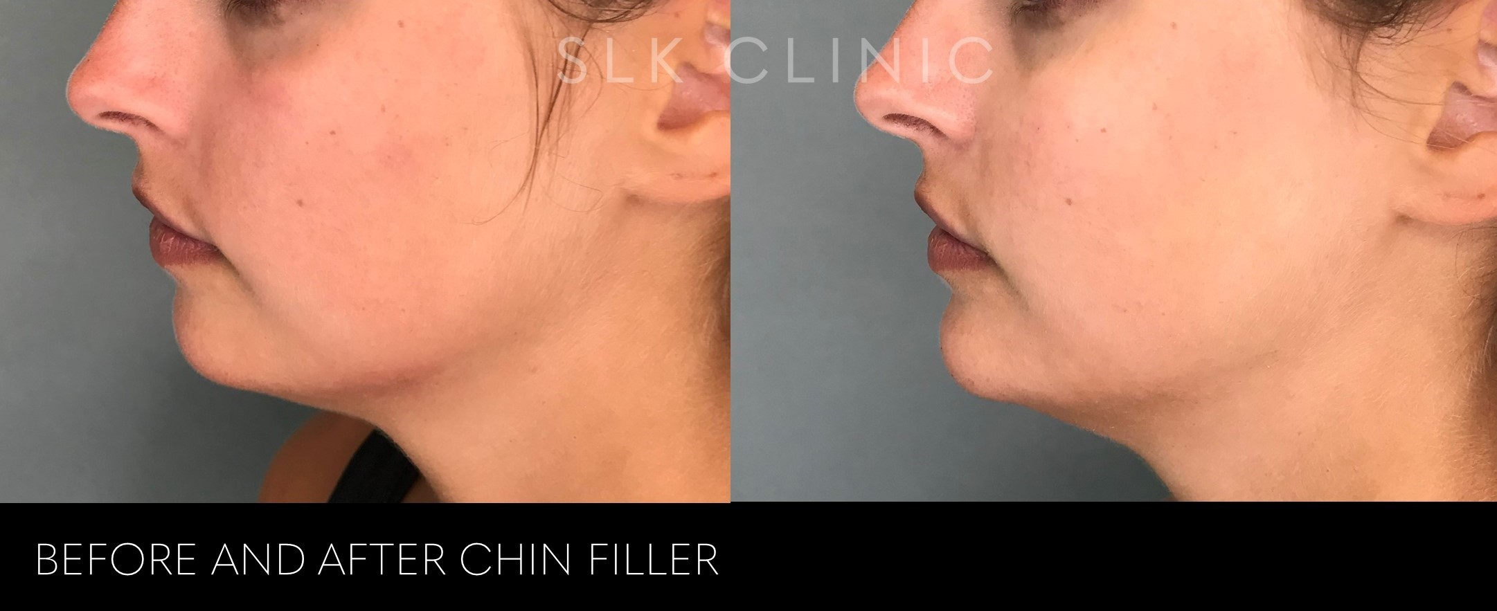 before and after non surgical chin augmentation nashville - with filler