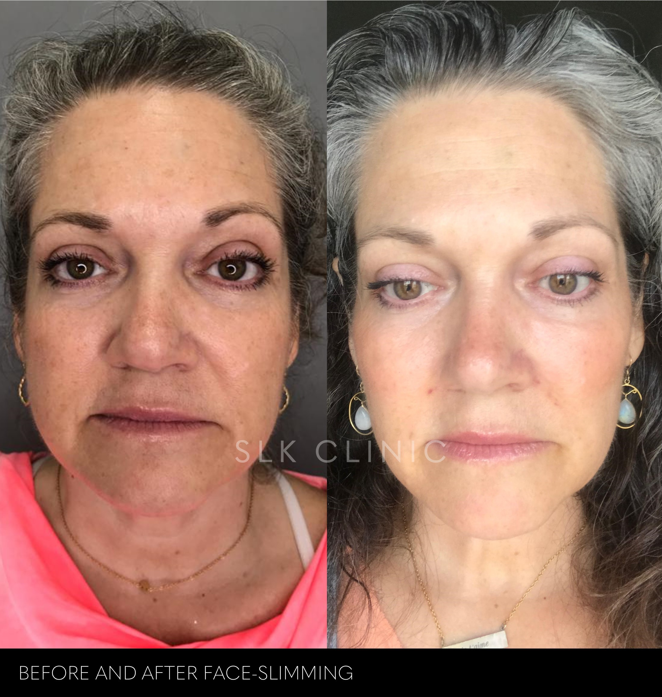 before and after face slimming and neck tightening procedures in our Nashville Clinic for a woman in her 50s