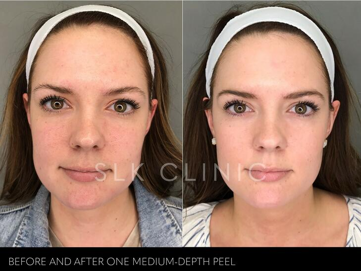 before and after one revepeel original