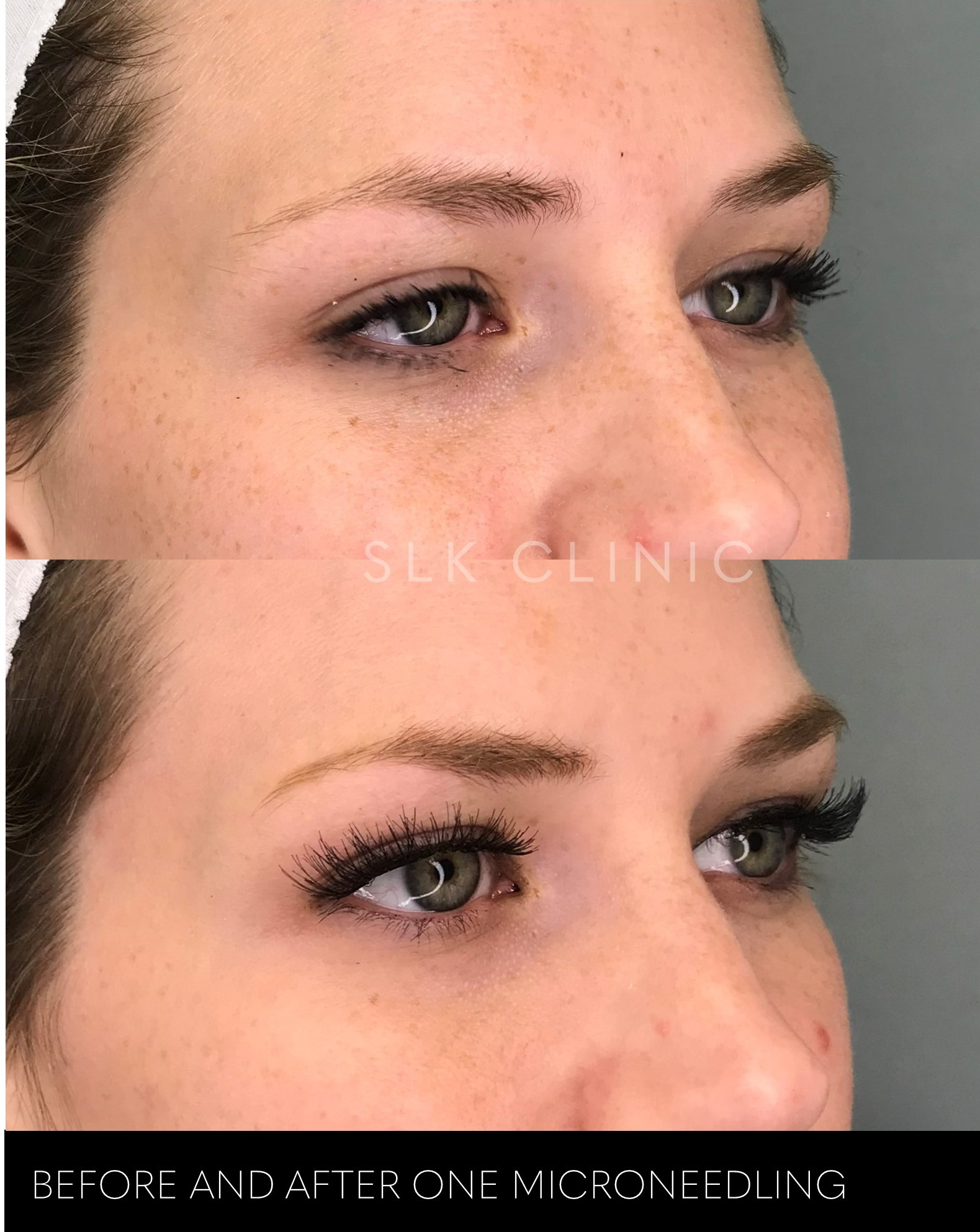 before and after one session of microneedling for freckles girl nashville
