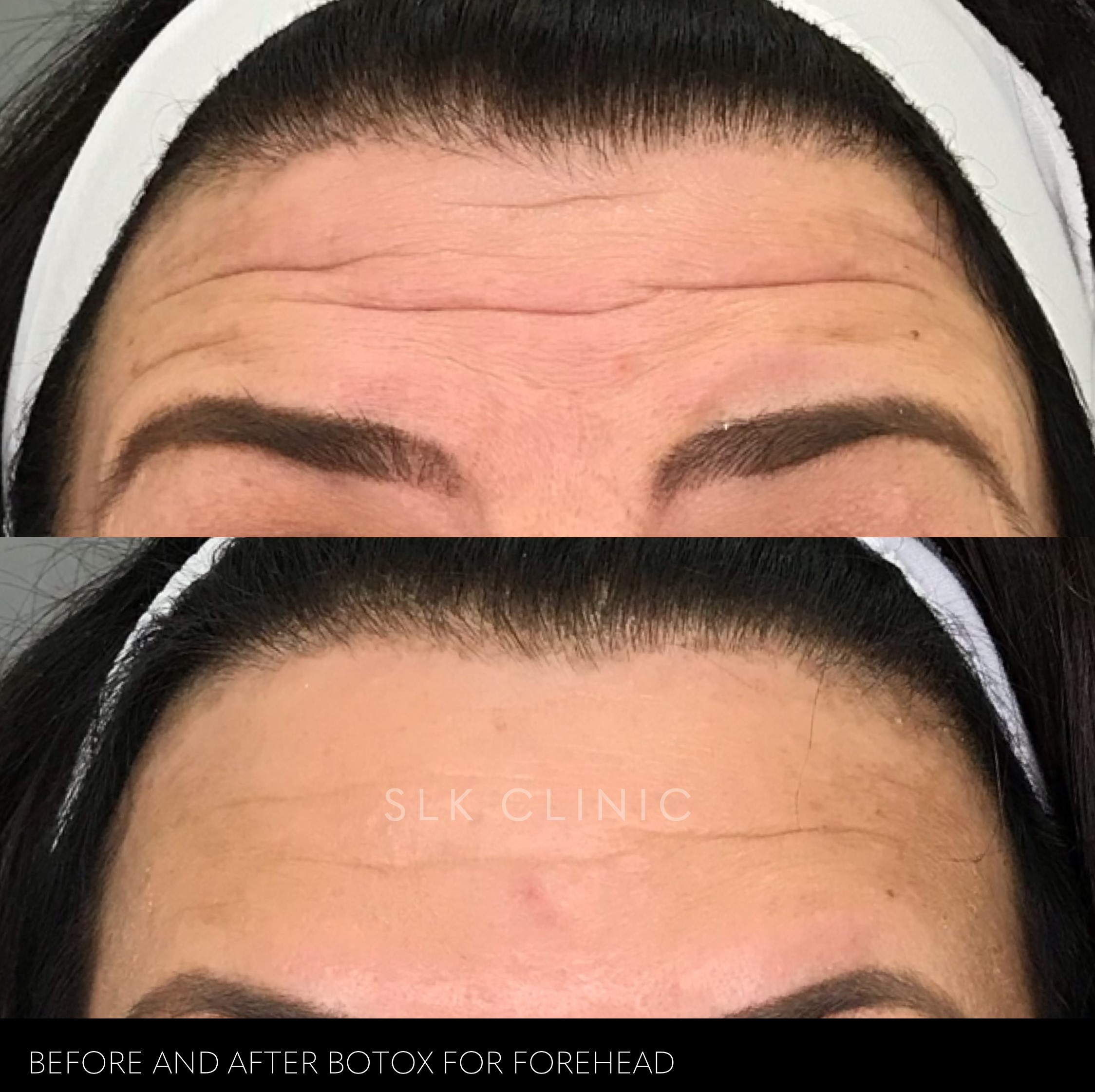a woman with beautiful skin that seems to have juvederm or skin tightening treatment
