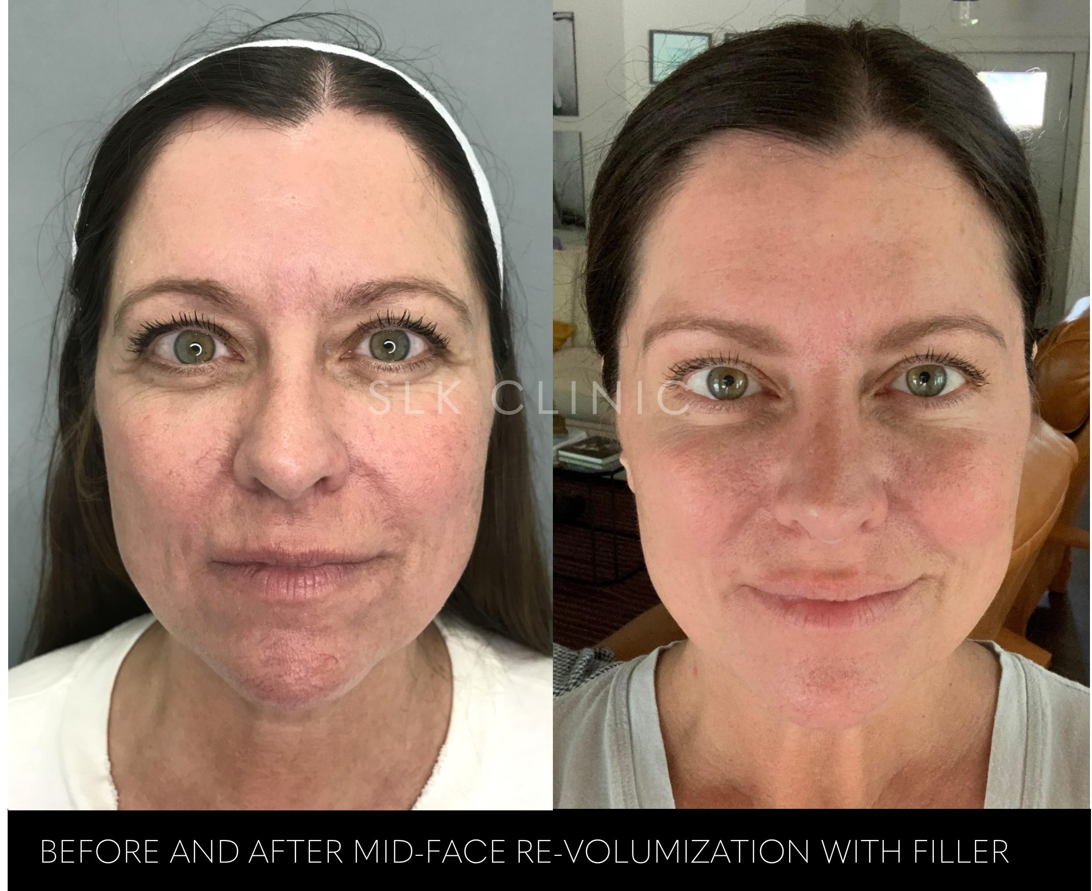 before and after photo of cheek filler - front view - slk nashville - 54 yo woman-1