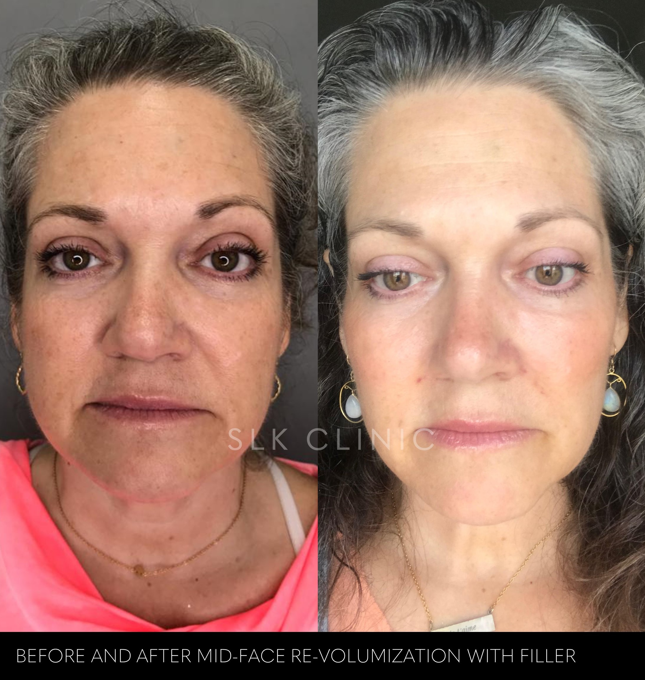 before and after photo of cheek filler with voluma nashville