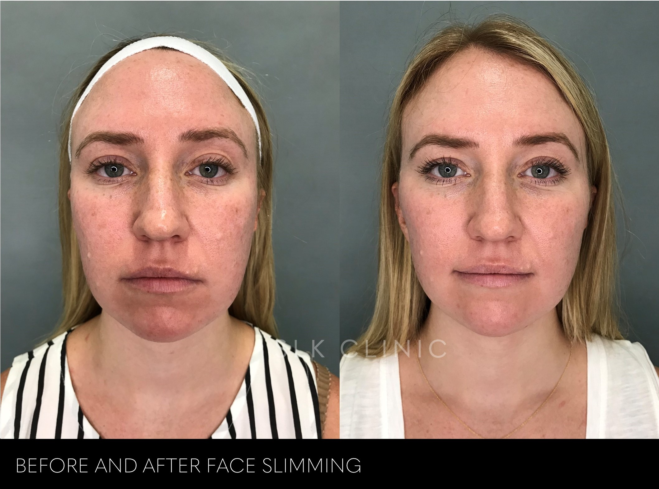 before and after photo of face slimming for woman in her 20s
