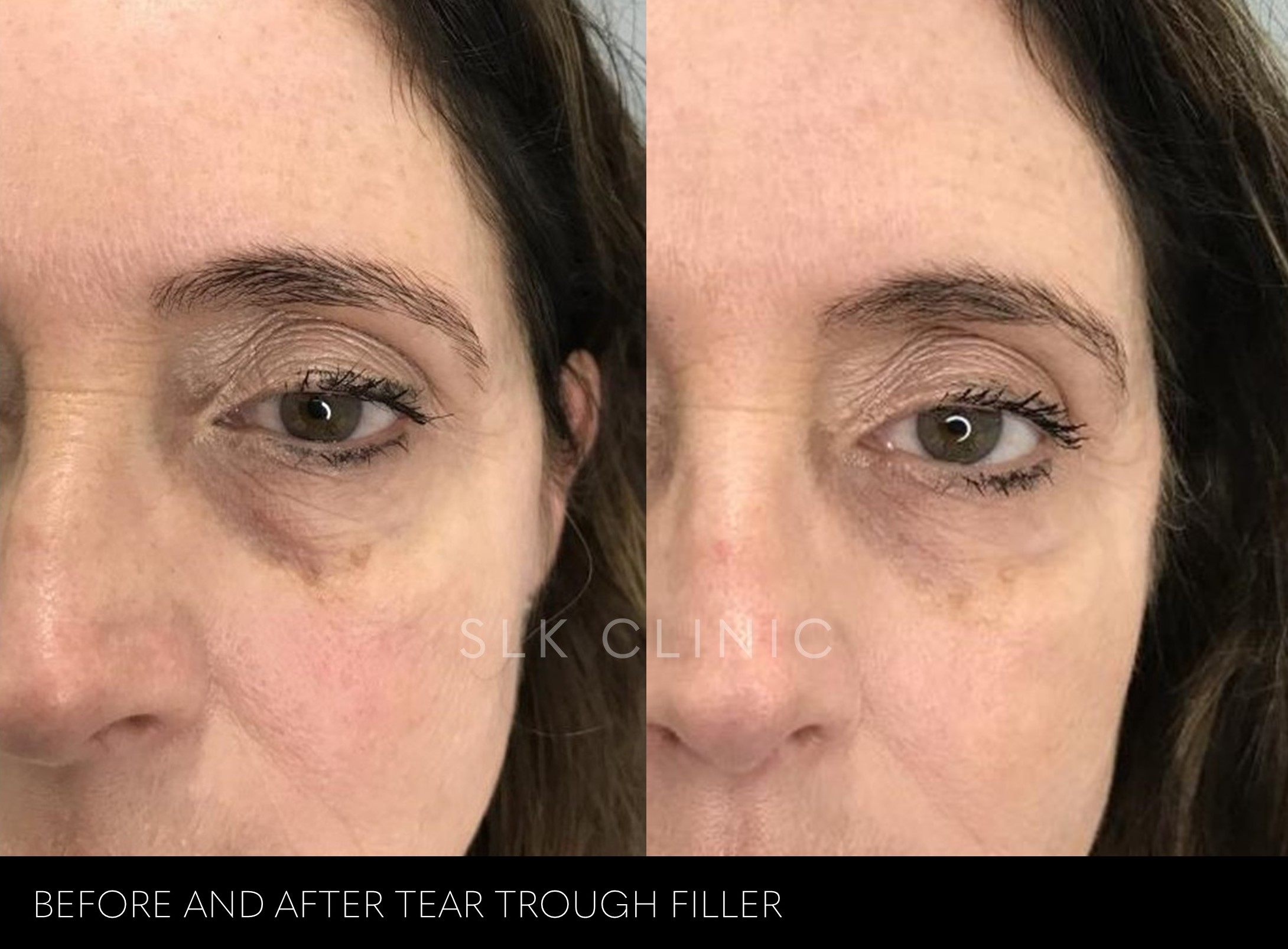 before and after photo tear trough under eye circle filler nashville woman