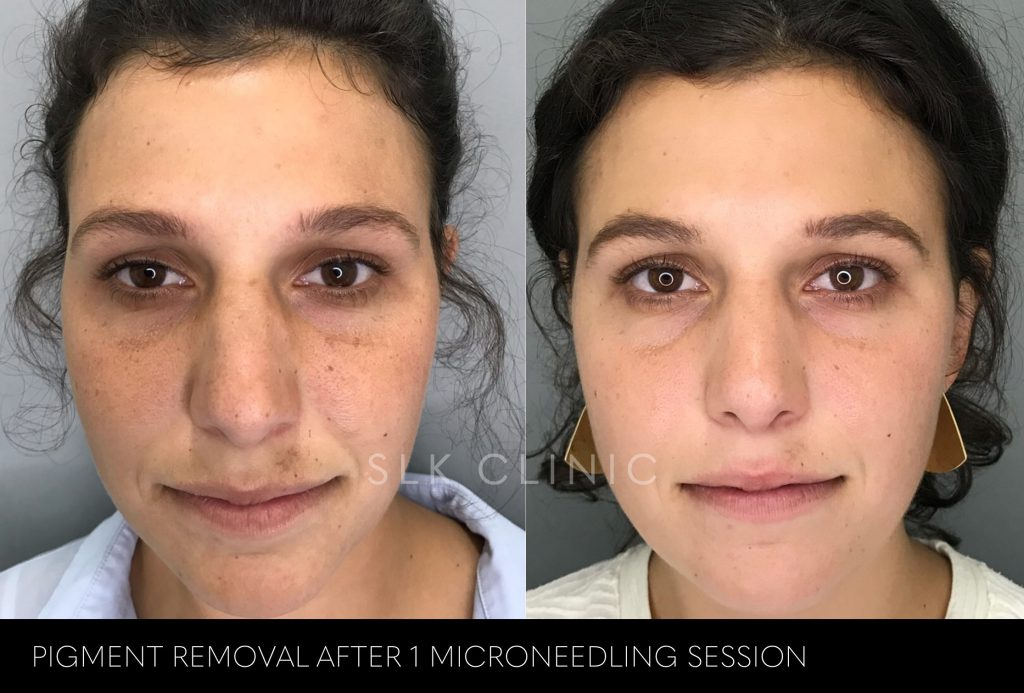 before and after photos for pigment removal - after 1 microneedling session