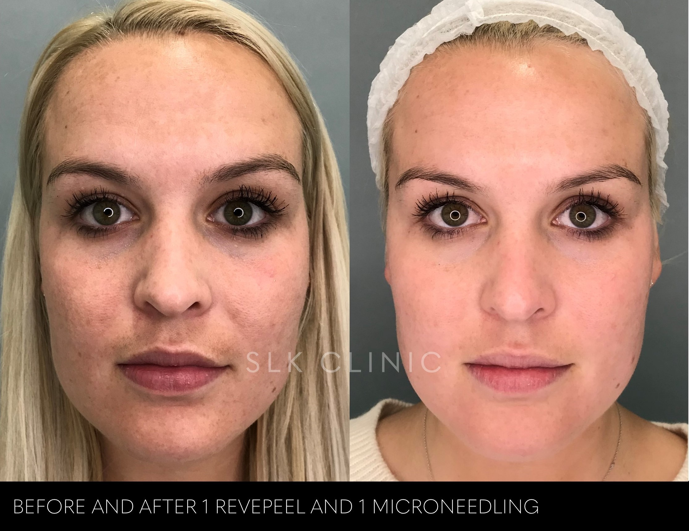 before and after photos of one revepeel and microneedling combination treatment