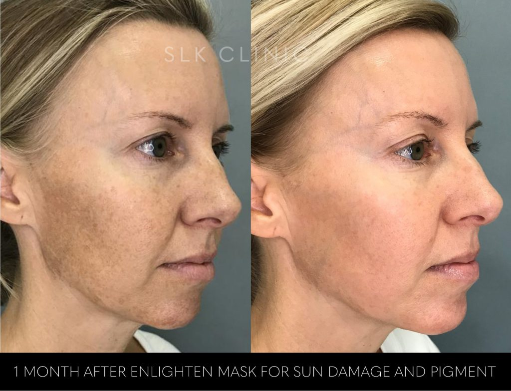 before and after photos of one revepeel enlighten mask for face hyperpigmentation removal cheek view