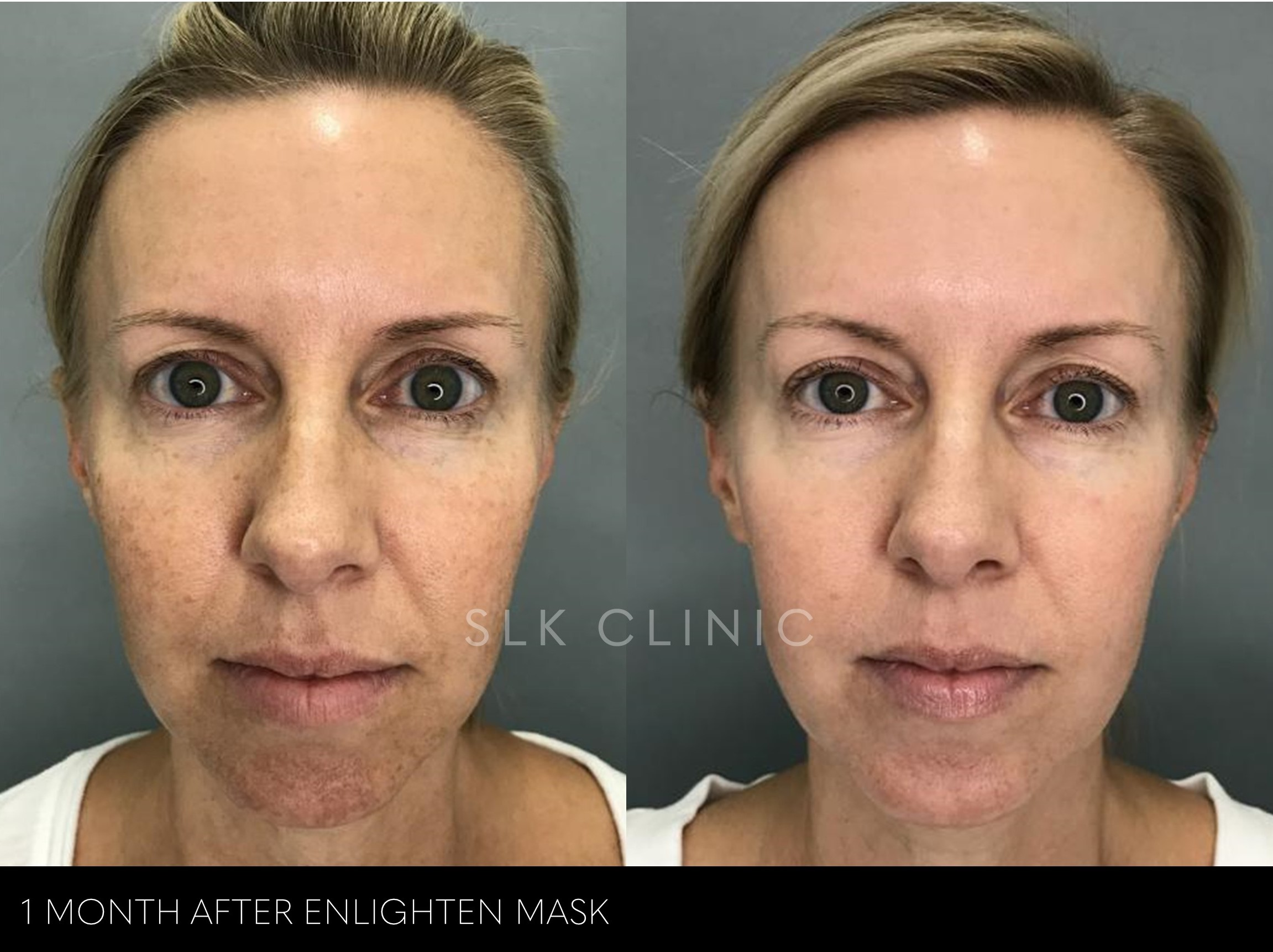before and after photos of one revepeel enlighten mask for face hyperpigmentation removal
