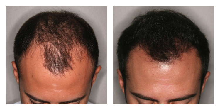 before and after prp for front scalp man