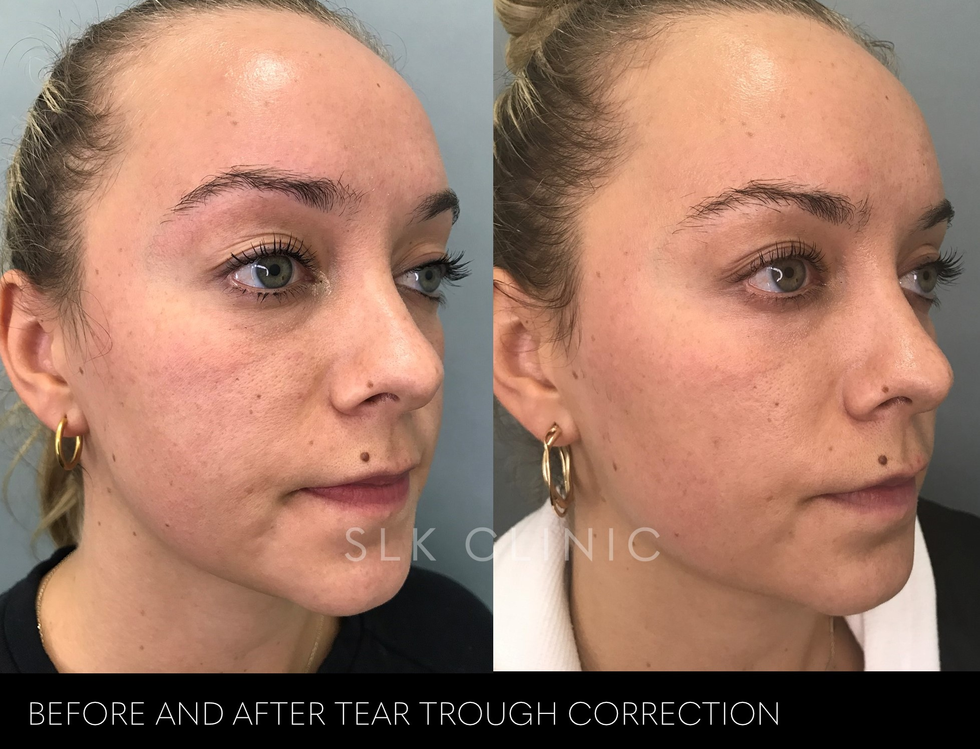 before and after tear trough lid cheek junction