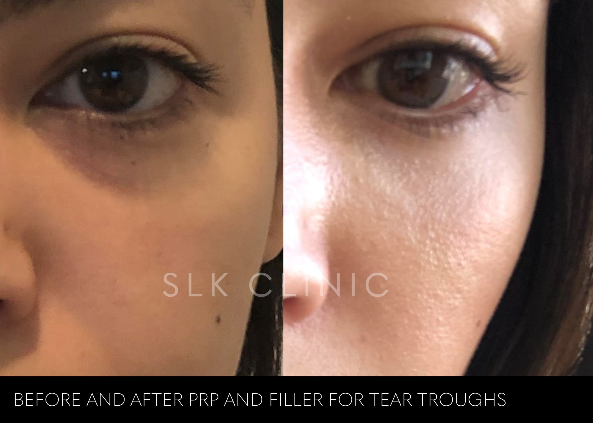 before and after PRP and filler combo for tear troughs