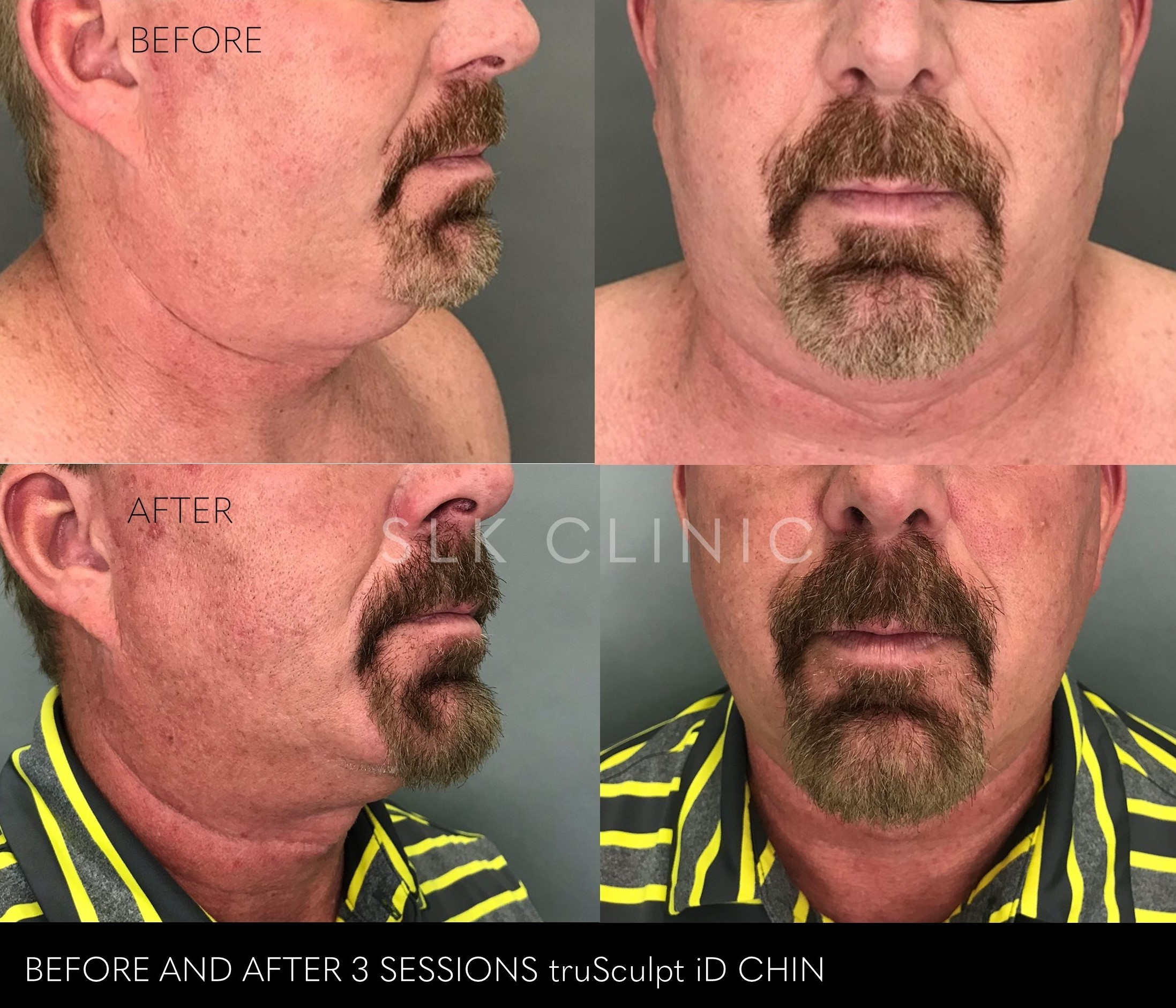 before and after trusculpt chin - 3 sessions - male