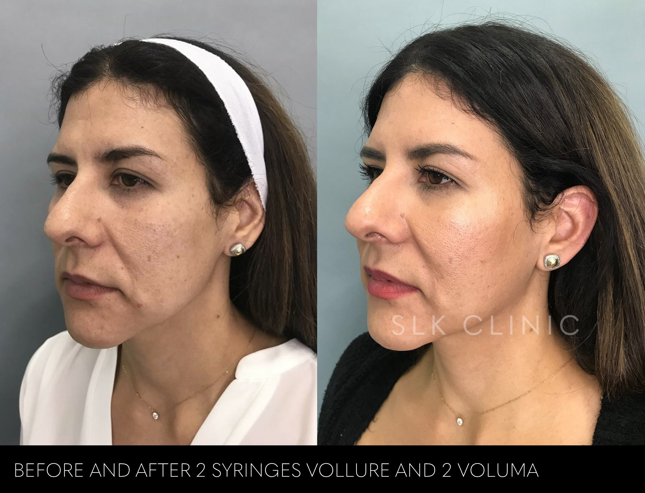 cheek filler and nasolabial fold filler nashville before and after photos