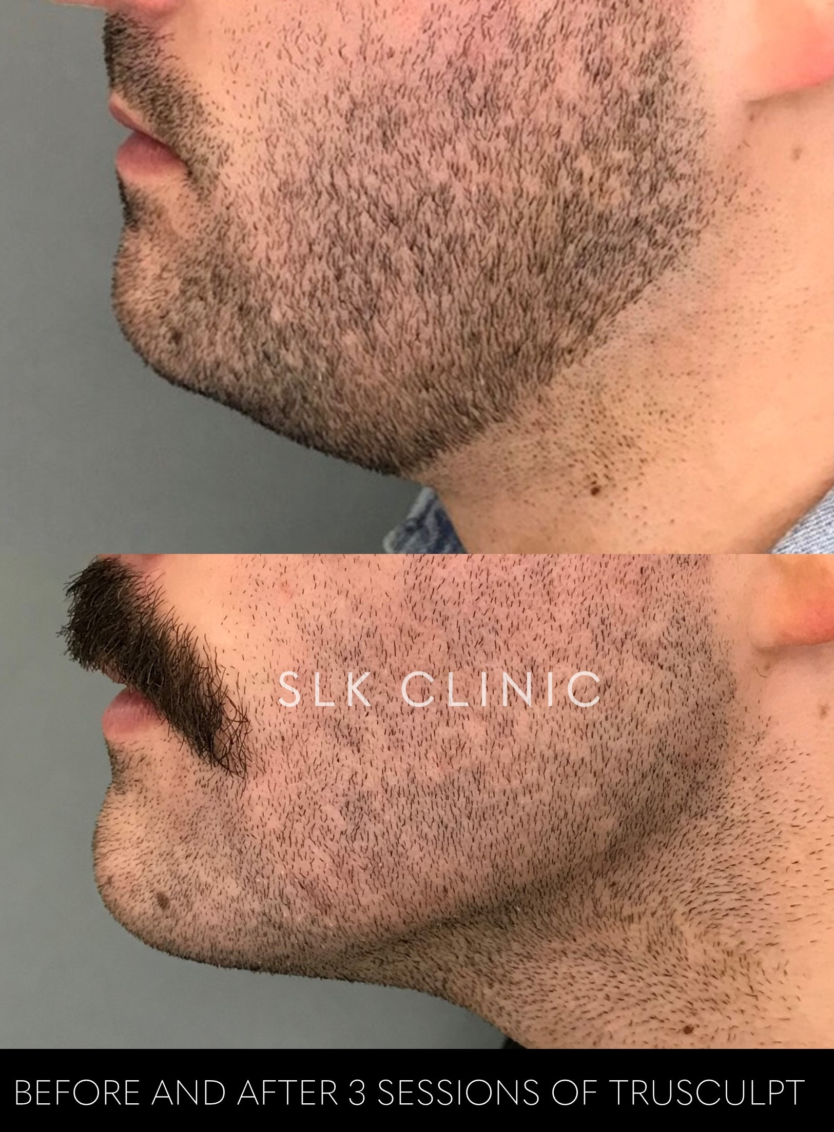 chin fat removal with trusculpt id before and after