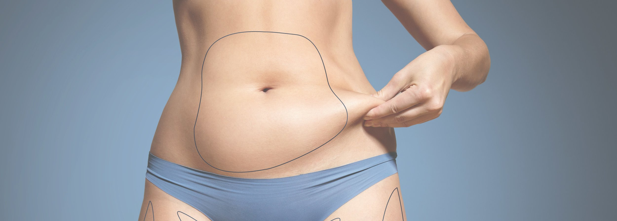 How to fix Coolsculpting dents, shelves, and other uneven side effects