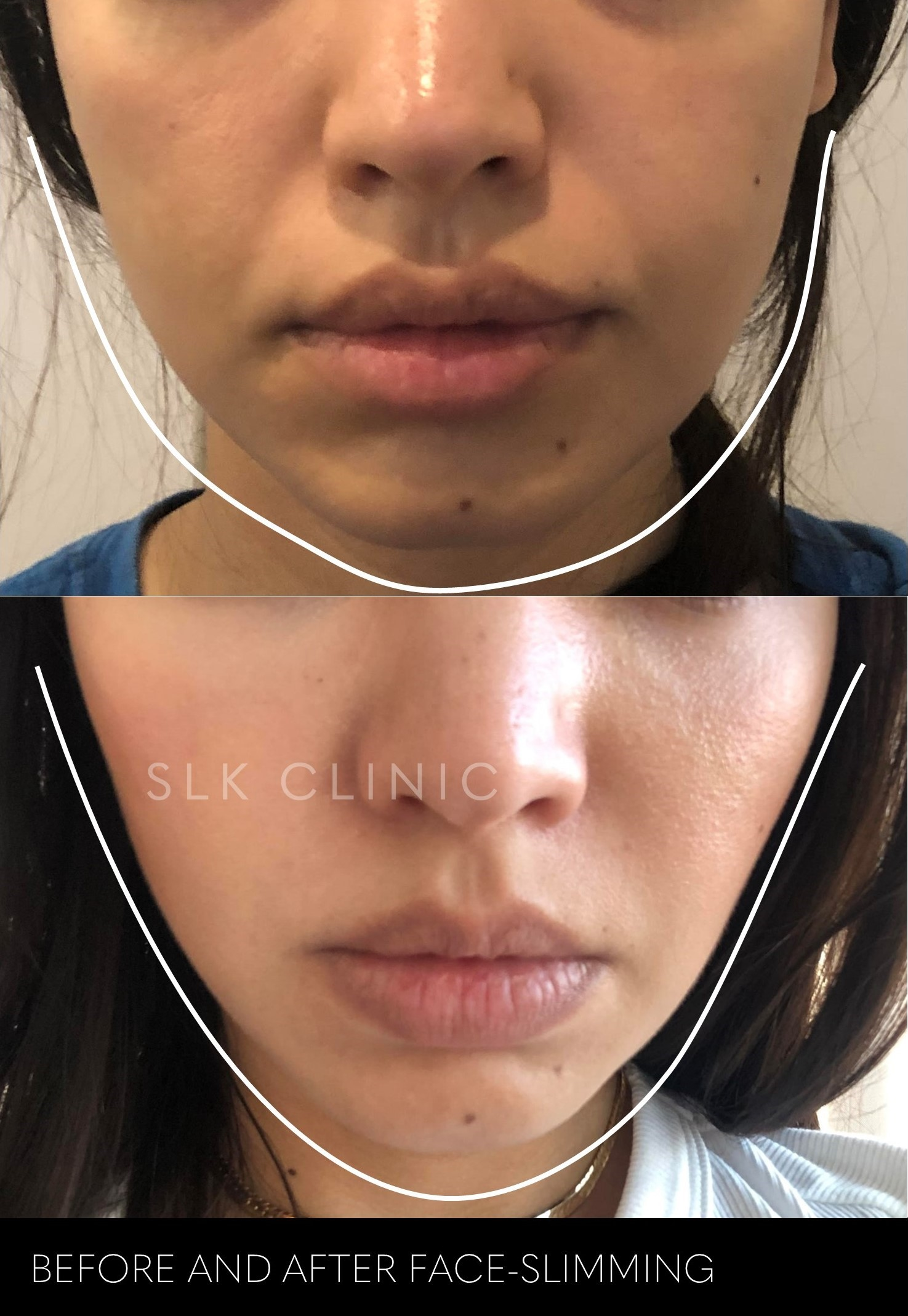 face-slimming before and after slk nashville filler and skin tightening