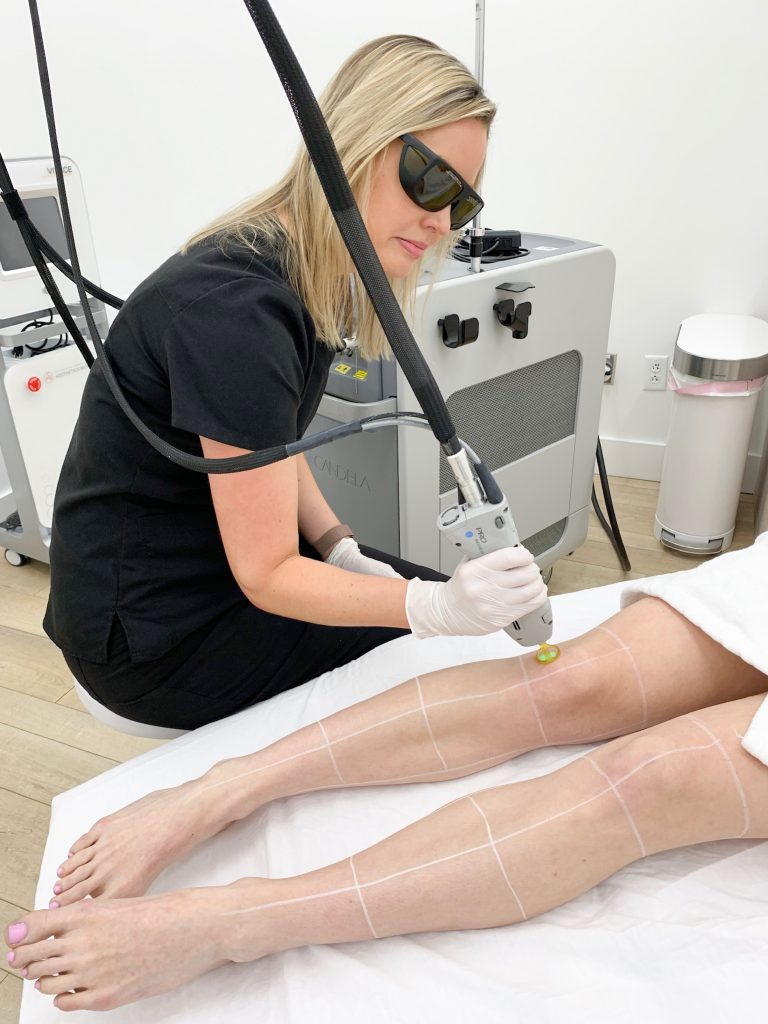 What Is The Best Device For Laser Hair Removal