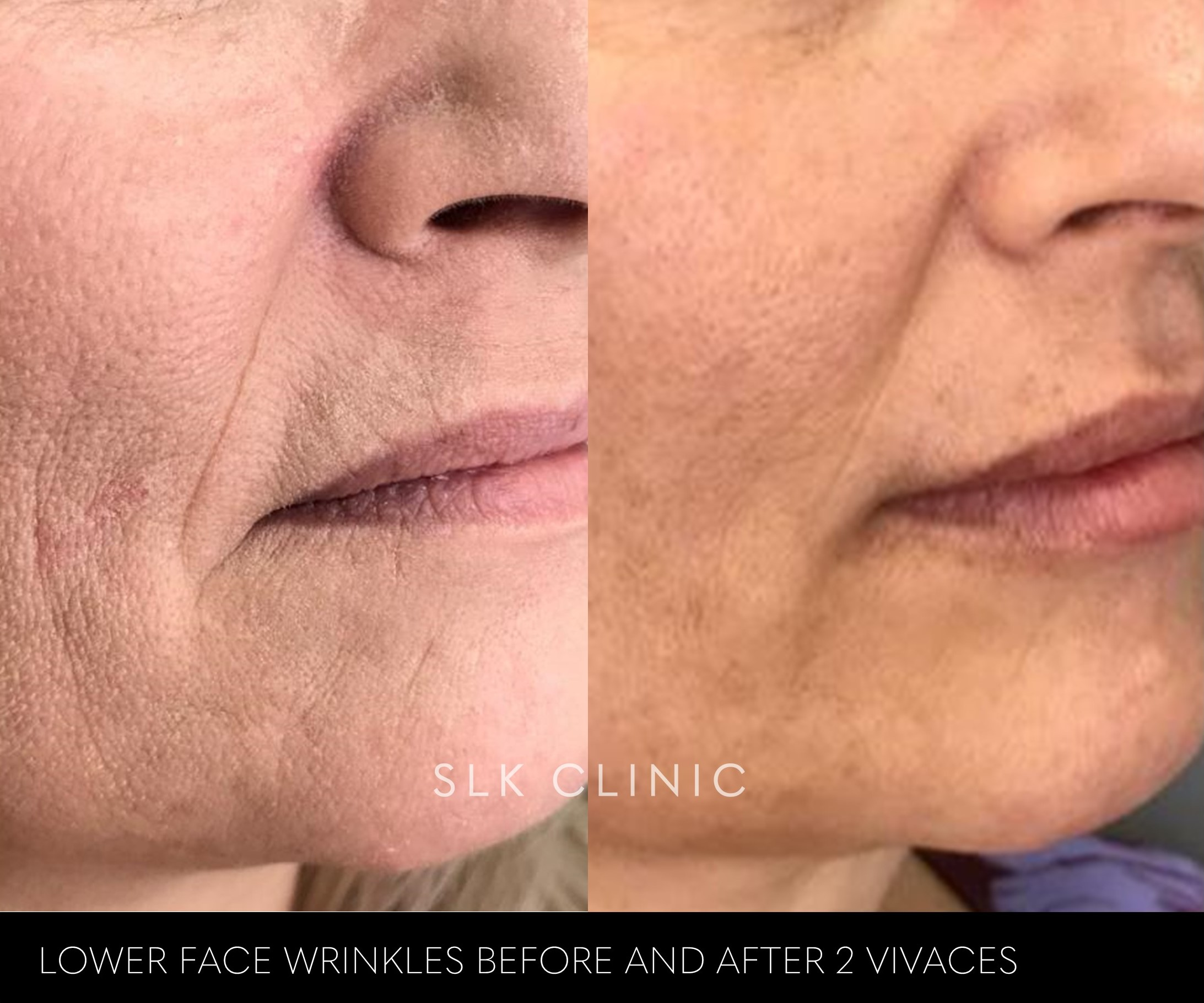 lower face wrinkles and texture before and after 2 vivaces