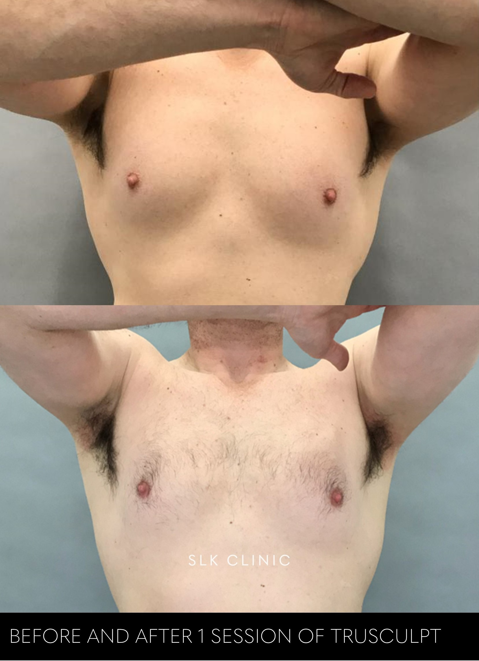 male chest before and after trusculpt July 2019