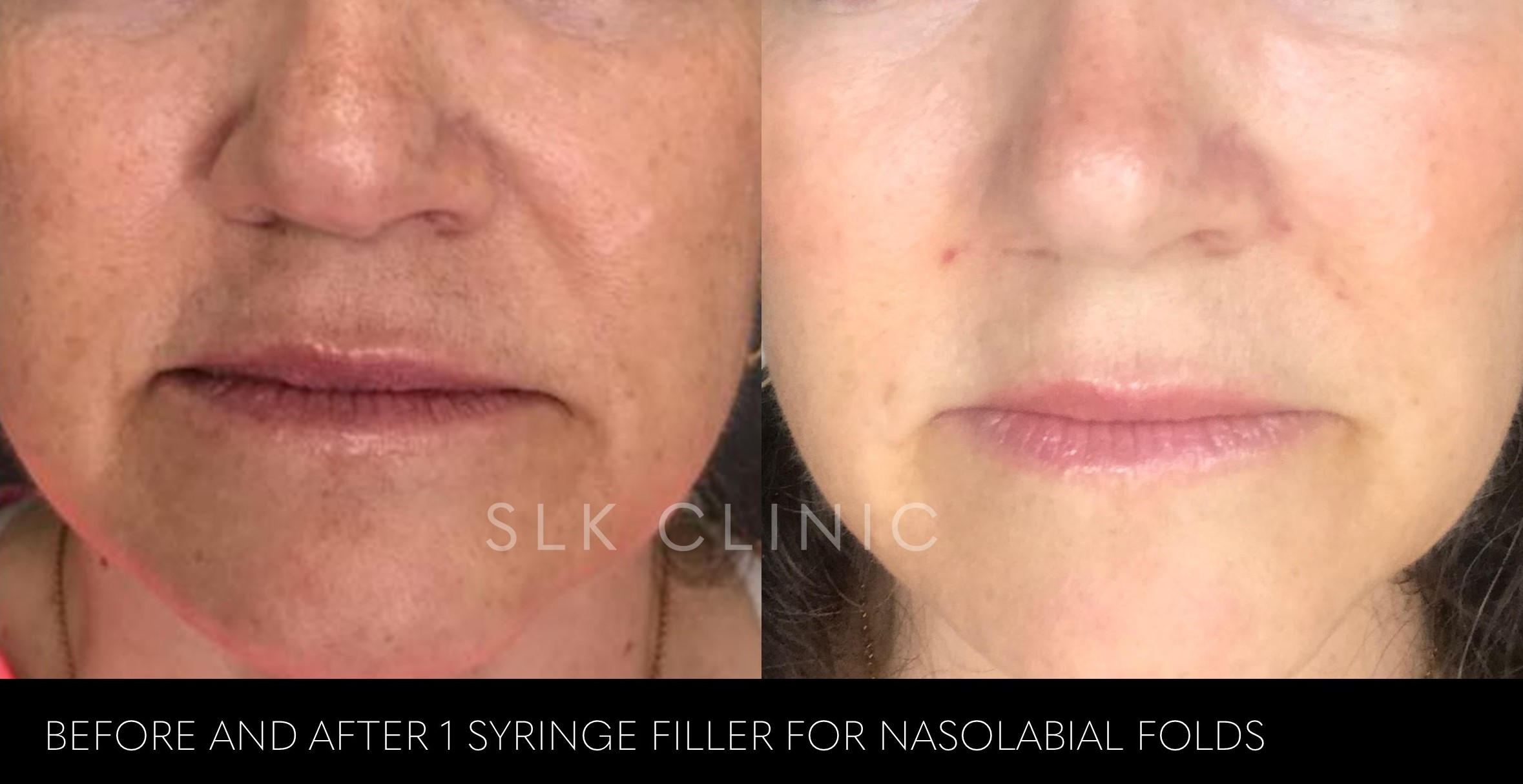 older woman before and after nasolabial folds - 1 syringe of juvederm ultra plus