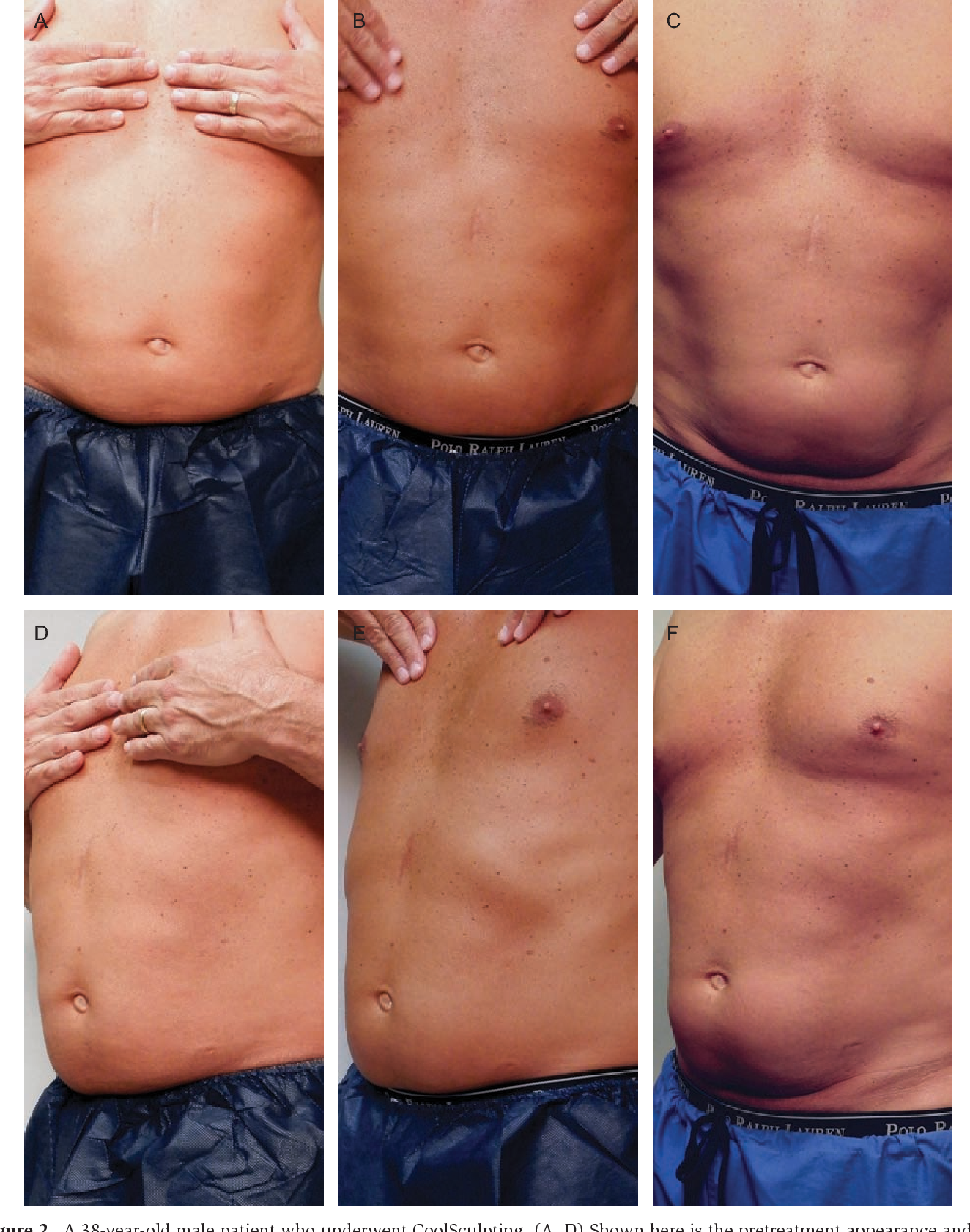 paradoxical adipose hyperplasia coolsculpting vs trusculpt