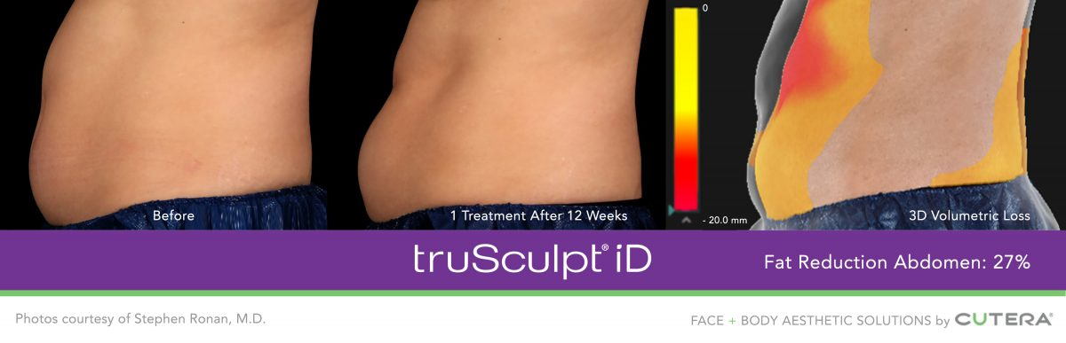 trusculpt id fat removal diagram for body contouring at the Nashville SLK clinic
