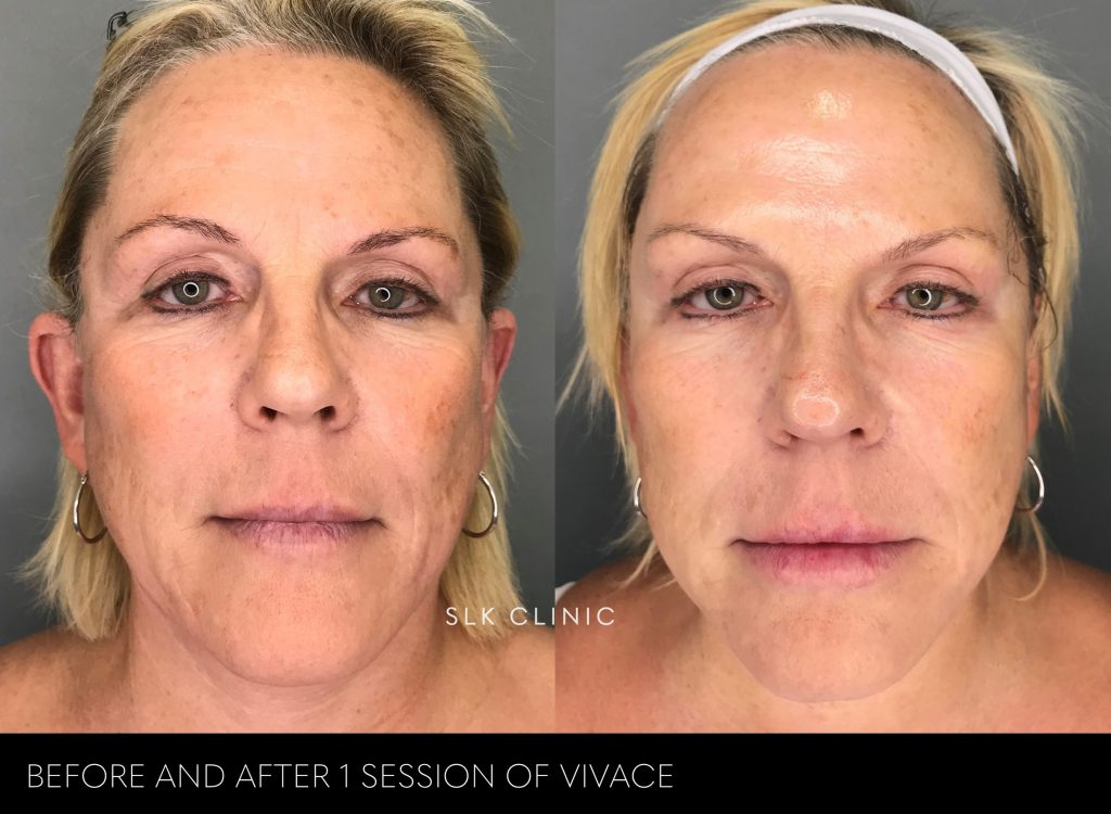 vivace before and after 1 session for tightening and pigment