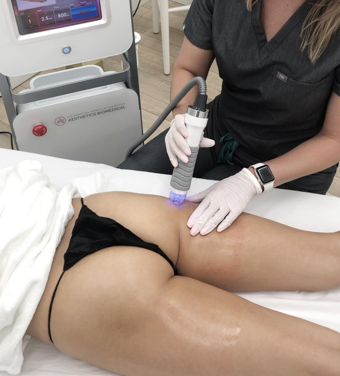 vivace body tightening and stretch mark removal thighs and buttocks