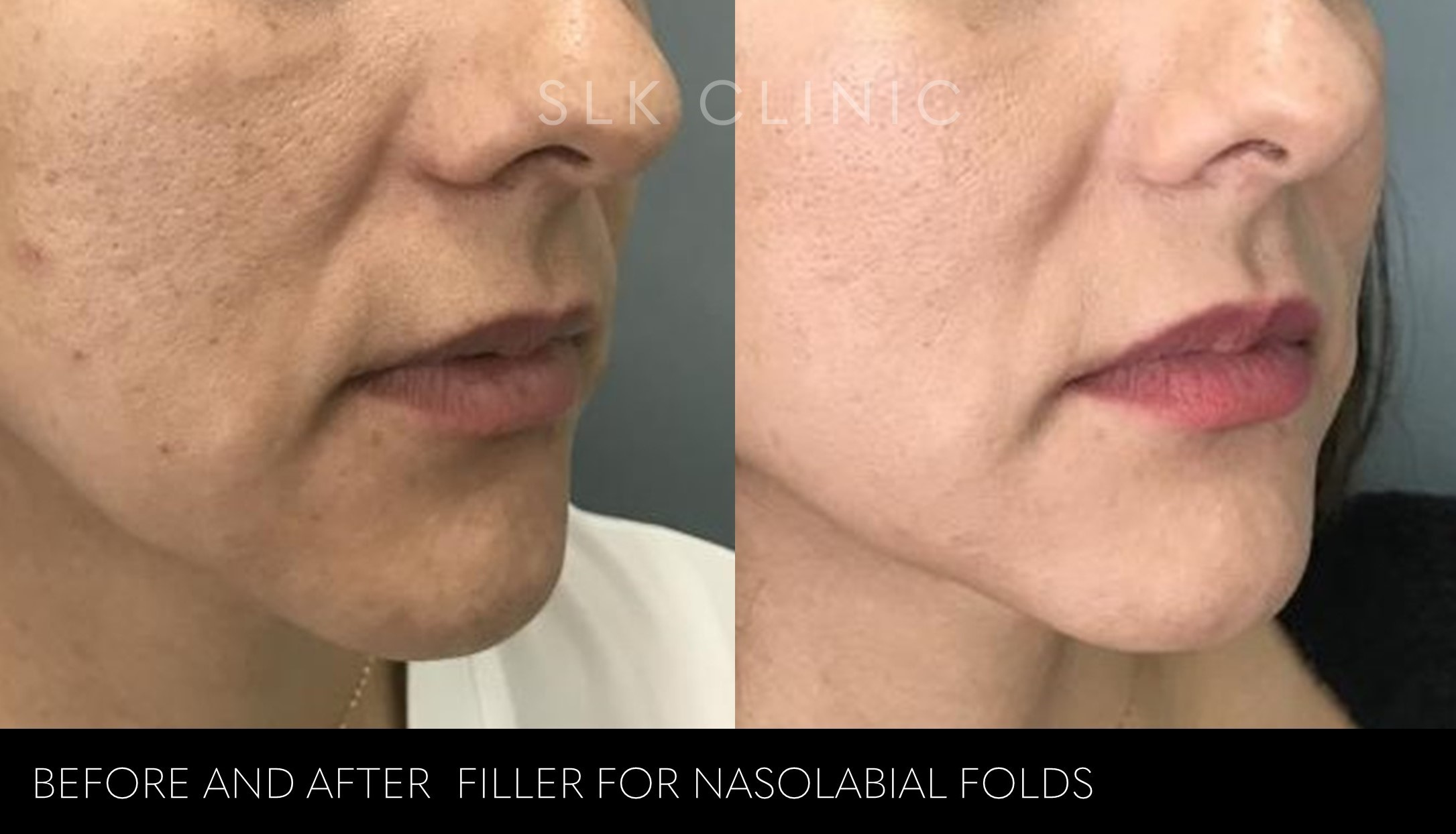 woman before and after nasolabial folds filler nashville - 2 syringes of vollure