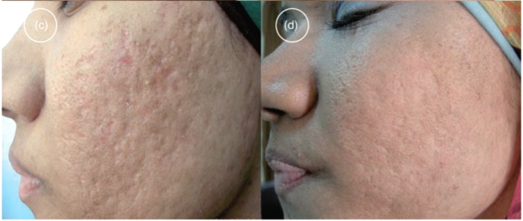 Before (left) and after 4 sessions of microneedling with platelet-rich plasma
