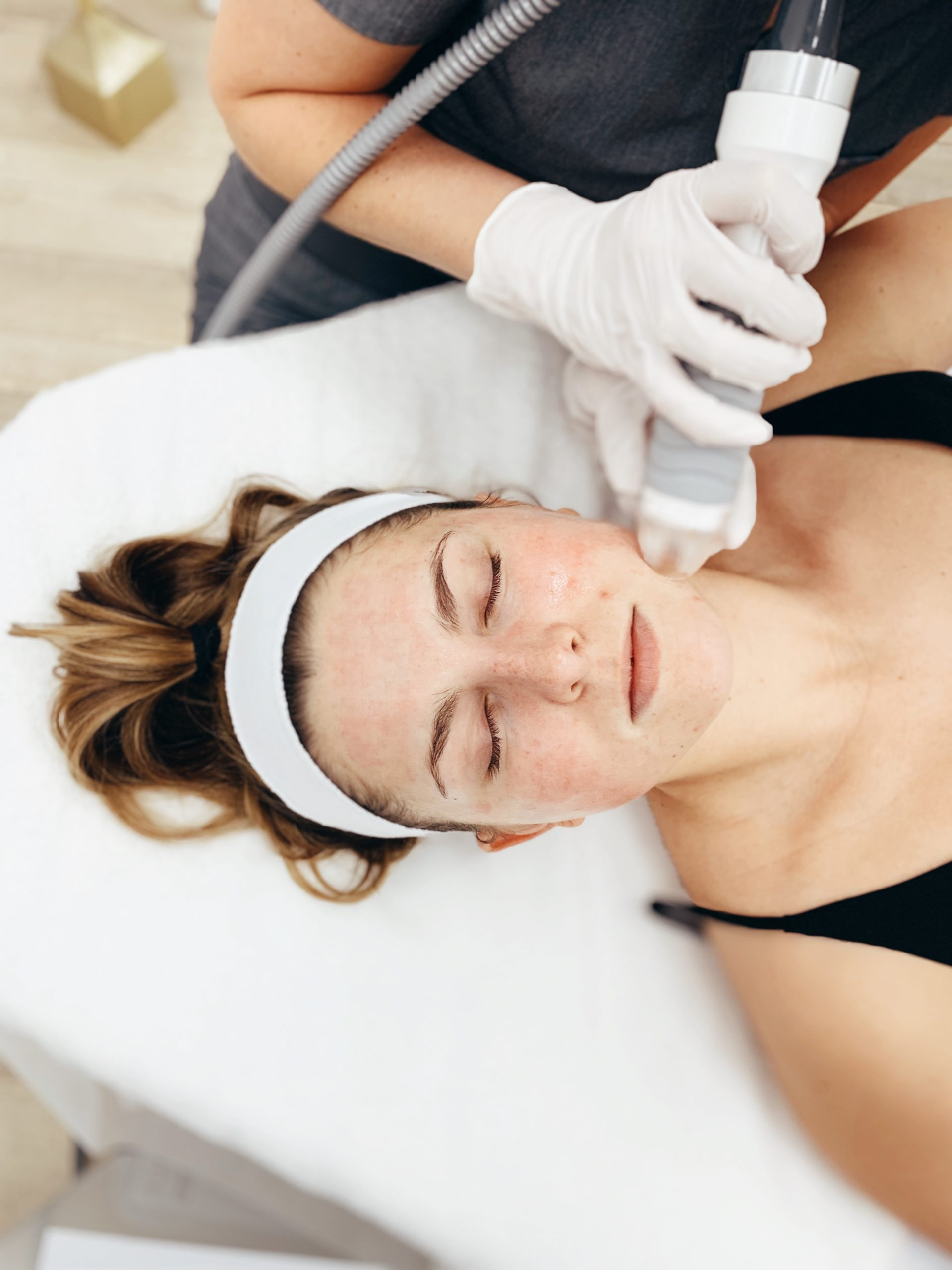 young woman receiving vivace radiofrequency microneedling on the face