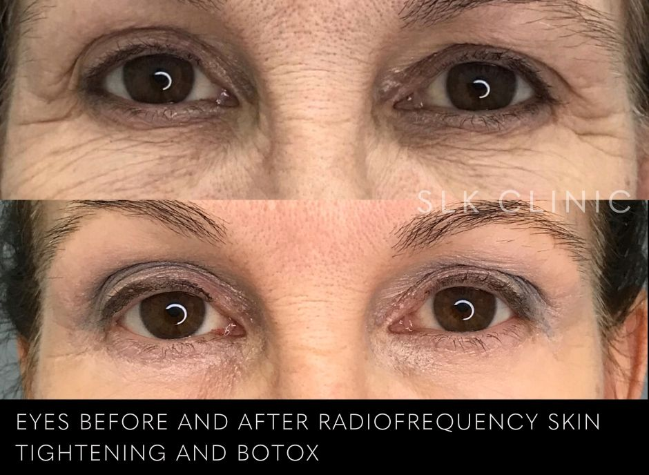 before and after vivace radiofrequency microneedling skin tightening for crows feet skin and botox