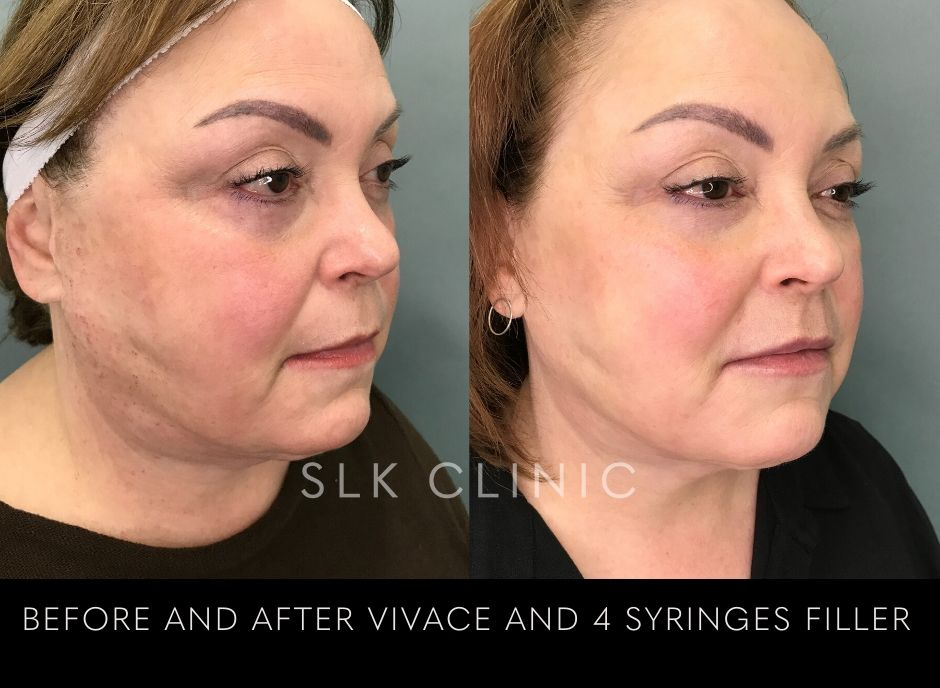 skin tightening combined with cheek filler results