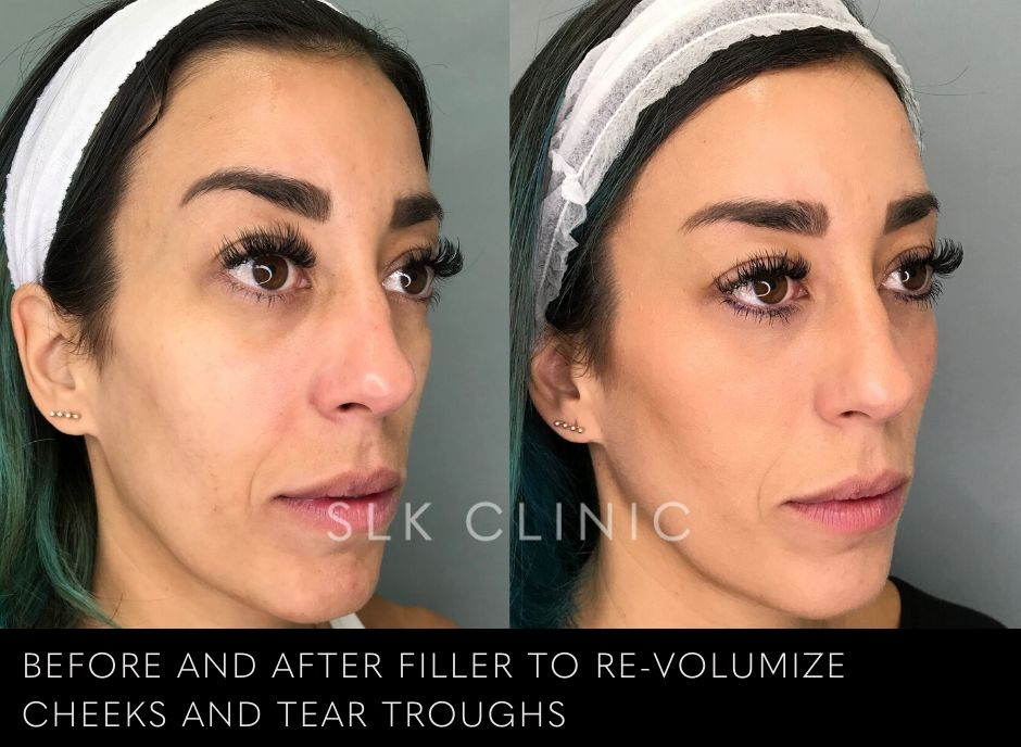 before and after voluma and tear troughs under eye filler correction